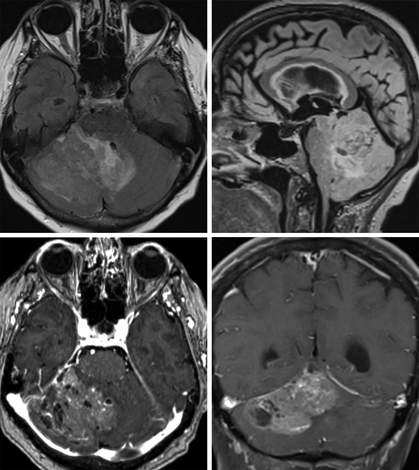 Figure 2: This heterogeneous infiltrative lesion centered in the right cerebellar hemisphere on FLAIR (top left, axial; top right, sagittal) demonstrates only mild associated edema and mild mass effect for the size of the lesion. There are small cystic changes and conspicuous enhancing vessels, and single hemispheric dominance but midline crossing that are typical of dysplastic cerebellar gangliocytoma/L'hermitte-Duclos disease on contrast-enhanced imaging (bottom left, axial; bottom right, coronal). The degree of enhancement is moderate in this patient but highly variable in this type of tumor.