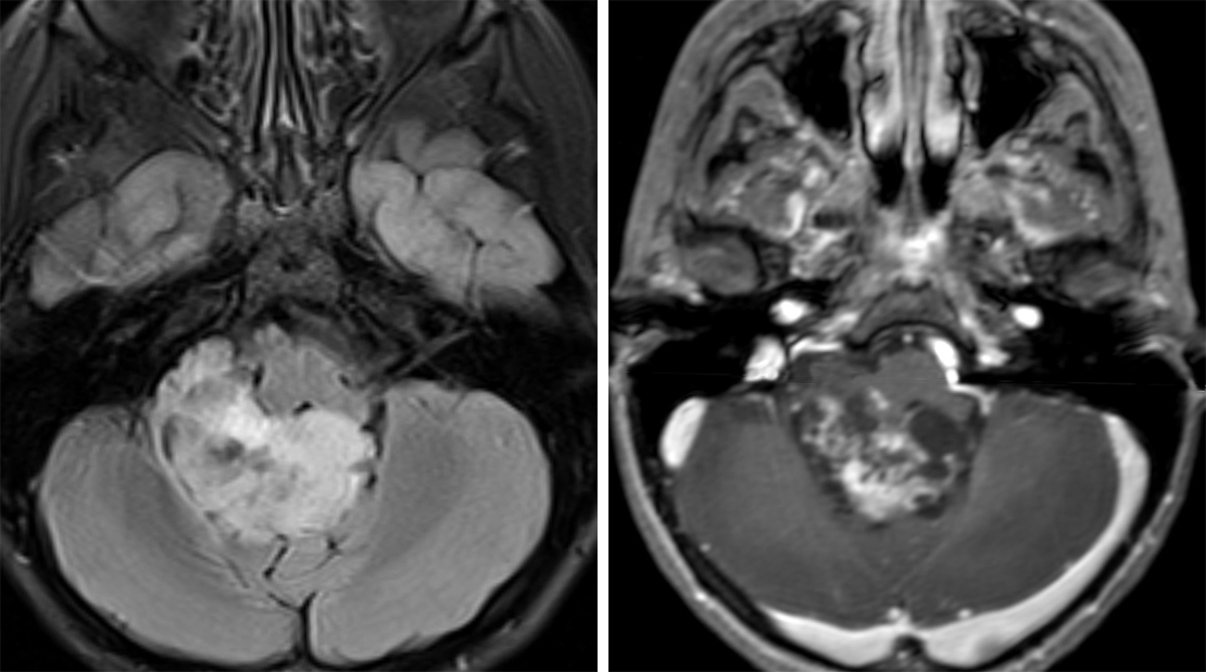 Figure 1: (Left) This posterior fossa ependymoma is in its typical intraventricular location, squeezing through the right foramen of Luschka on this axial FLAIR image. (Right) Contrast-enhanced T1WI shows typical avid enhancement of this mass. These visible cystic changes are also frequent in ependymoma.