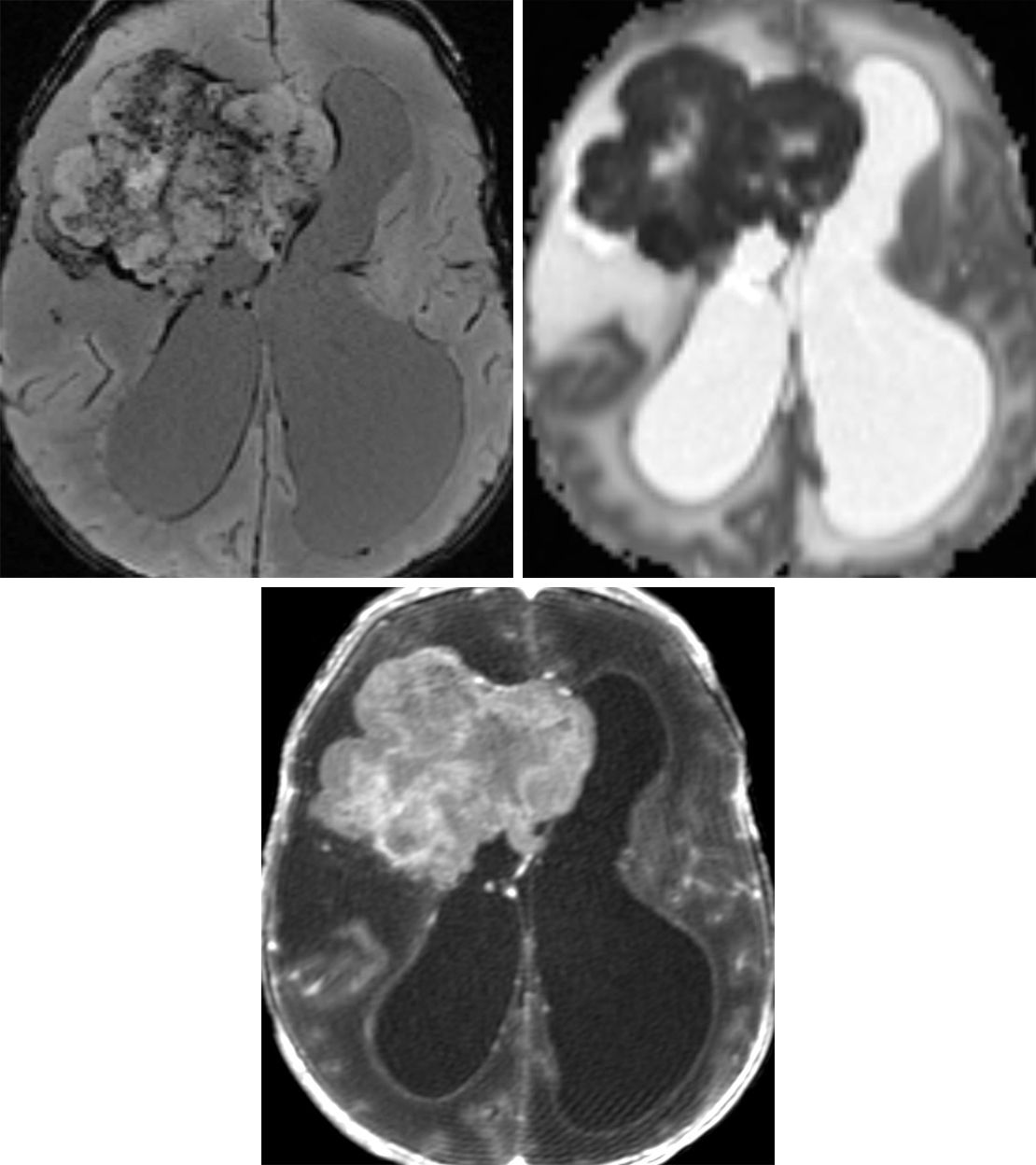 Figure 1: This aggressive-looking right frontal anaplastic ependymoma is in an extraventricular location more typical of the supratentorial ependymoma. (Top Left) As in this lesion, calcifications are common and are visible as low signal intensity on GRE/SWI. (Top Right) This tumor also demonstrates dark restricted diffusion on ADC imaging, representing hypercellularity. (Bottom) Enhancement on postcontrast T1WI is also common.