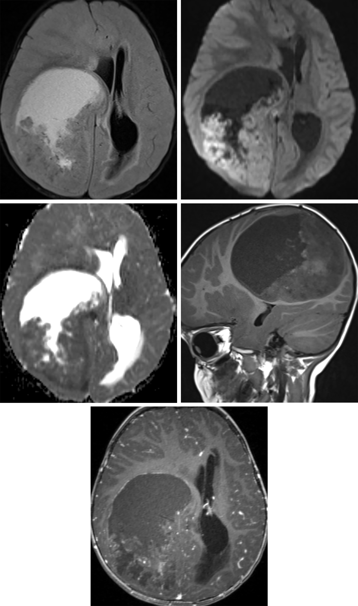 Figure 2: This supratentorial ependymoma is in a typical extraventricular location. The complex cystic and solid appearance is also more classic for these lesions, very different in appearance from infratentorial ependymomas. (Top Left) The bright signal of the cystic component that is different from CSF on FLAIR implies hemorrhagic or proteinaceous cystic contents. The restricted diffusion in the solid component (top right, DWI bright; middle left, ADC dark) is also more typical for the supratentorial versions of these tumors, implying hypercellularity. (Middle Right) The heterogeneous bright areas in this noncontrast T1-weighted sagittal image may represent hemorrhagic or calcific components. (Bottom) This ependymoma has very little enhancement, but moderate heterogeneous enhancement of the solid portions is more common for these tumors.