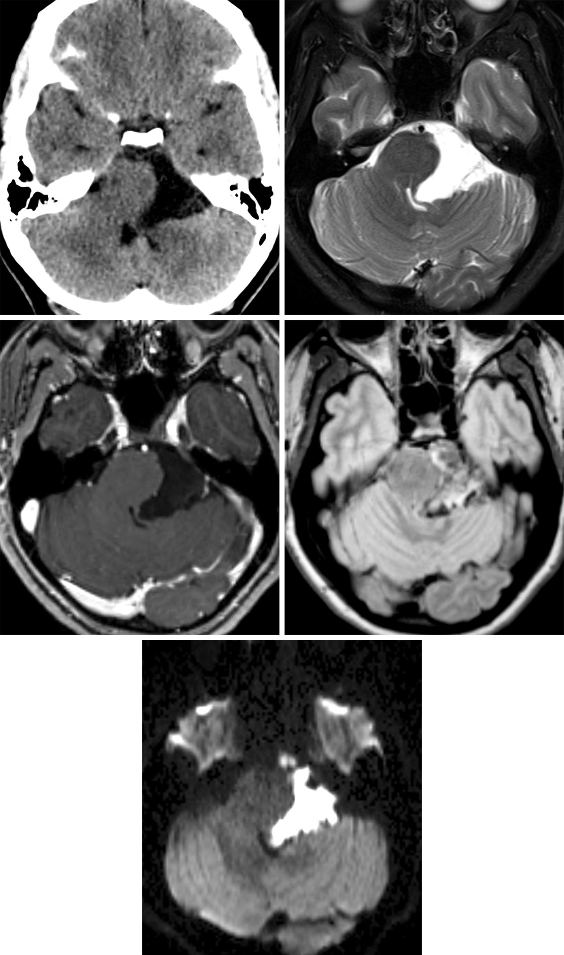 Figure 1: (Top Left) A low-density lesion in the left cerebellopontine angle on CT could represent a number of lesions, including arachnoid cyst or epidermoid cyst. T2WI (top right) and T1WI postcontrast (middle left) give little additional diagnostic information, with the lesion still matching CSF signal. (Middle Right) FLAIR imaging, as in this case, often demonstrates an epidermoid cyst to have different signal than CSF. (Bottom) Diffusion-weighted imaging is the most helpful sequence with these lesions, demonstrating often dramatic hyperintensity.