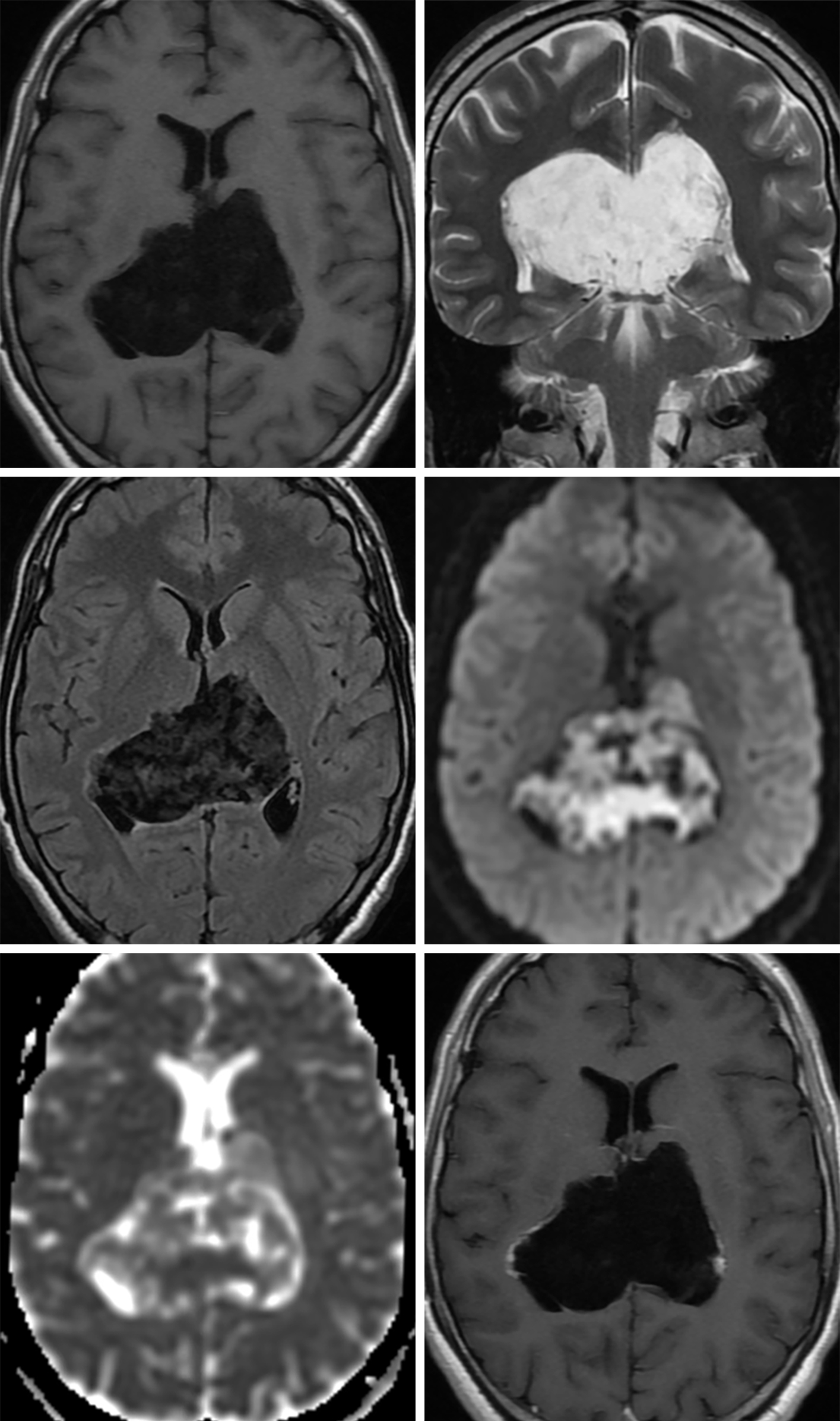 Figure 2: This large epidermoid cyst looks similar to CSF on T1-weighted (top left) and T2-weighted (top right) imaging, but its identity as a possible simple cyst should be questioned given the degree of heterogeneity that is often visible on FLAIR (middle left). Diffusion restriction visible as bright signal on DWI (middle right) and dark signal on ADC (bottom left) is the hallmark of epidermoid cysts and can greatly help to differentiate them from other simple cysts, such as arachnoid cysts. (Bottom Right) This epidermoid cyst has a small amount of nodular contrast enhancement in the periphery, a finding that is present only rarely.