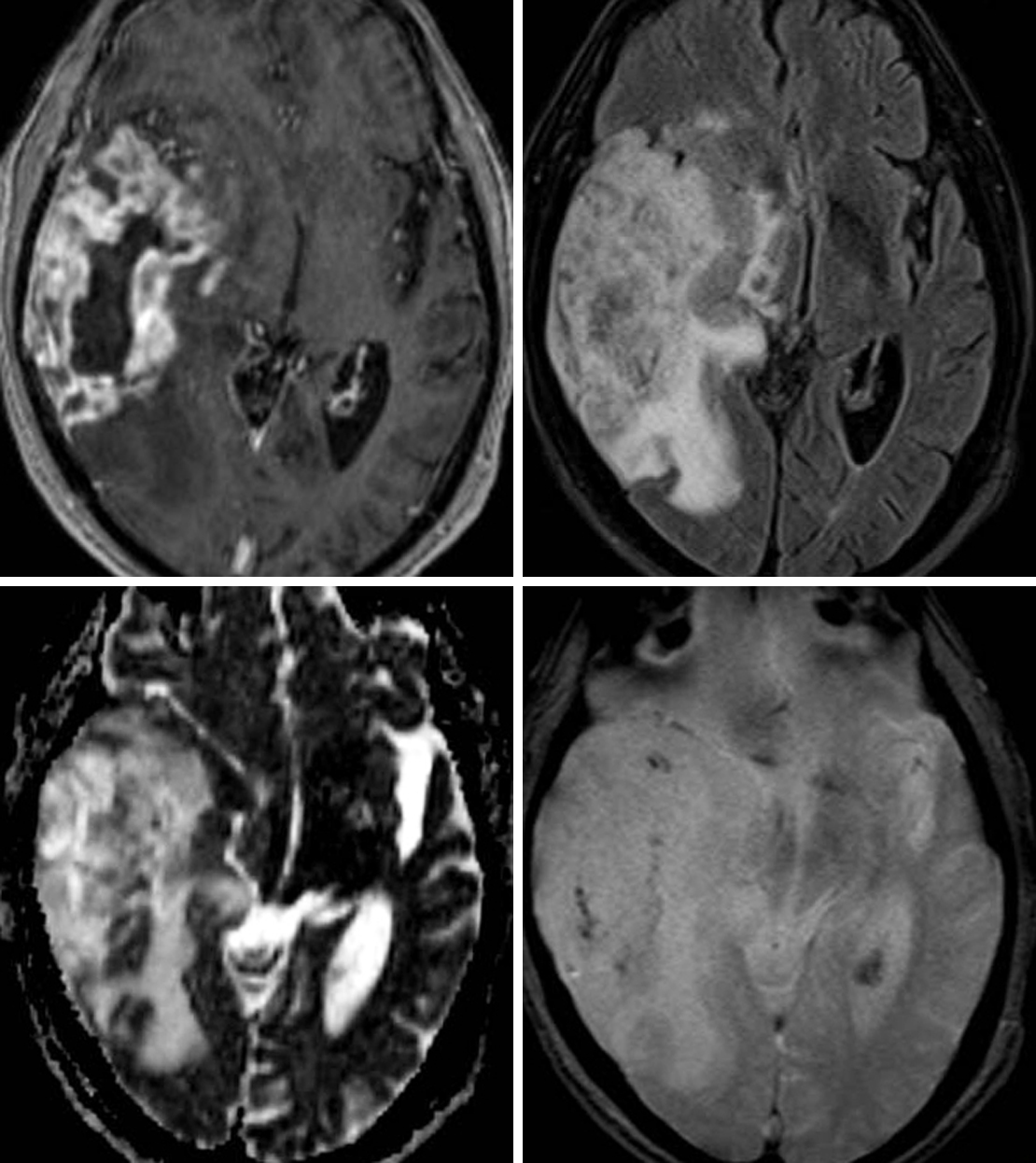 Figure 1: (Top Left) The avid peripheral enhancement and central necrosis seen in this lesion on postcontrast T1WI is typical of a GBM. (Top Right) Infiltrative FLAIR hyperintensity extending beyond the enhancing margins usually represents a combination of edema and nonenhancing infiltrative tumor. (Bottom Left) Areas of low signal intensity in regions of known tumor on ADC imaging usually indicate hypercellularity. (Bottom Right) Hemorrhagic foci are also not uncommonly seen on GRE or SWI, as in this patient's GBM.