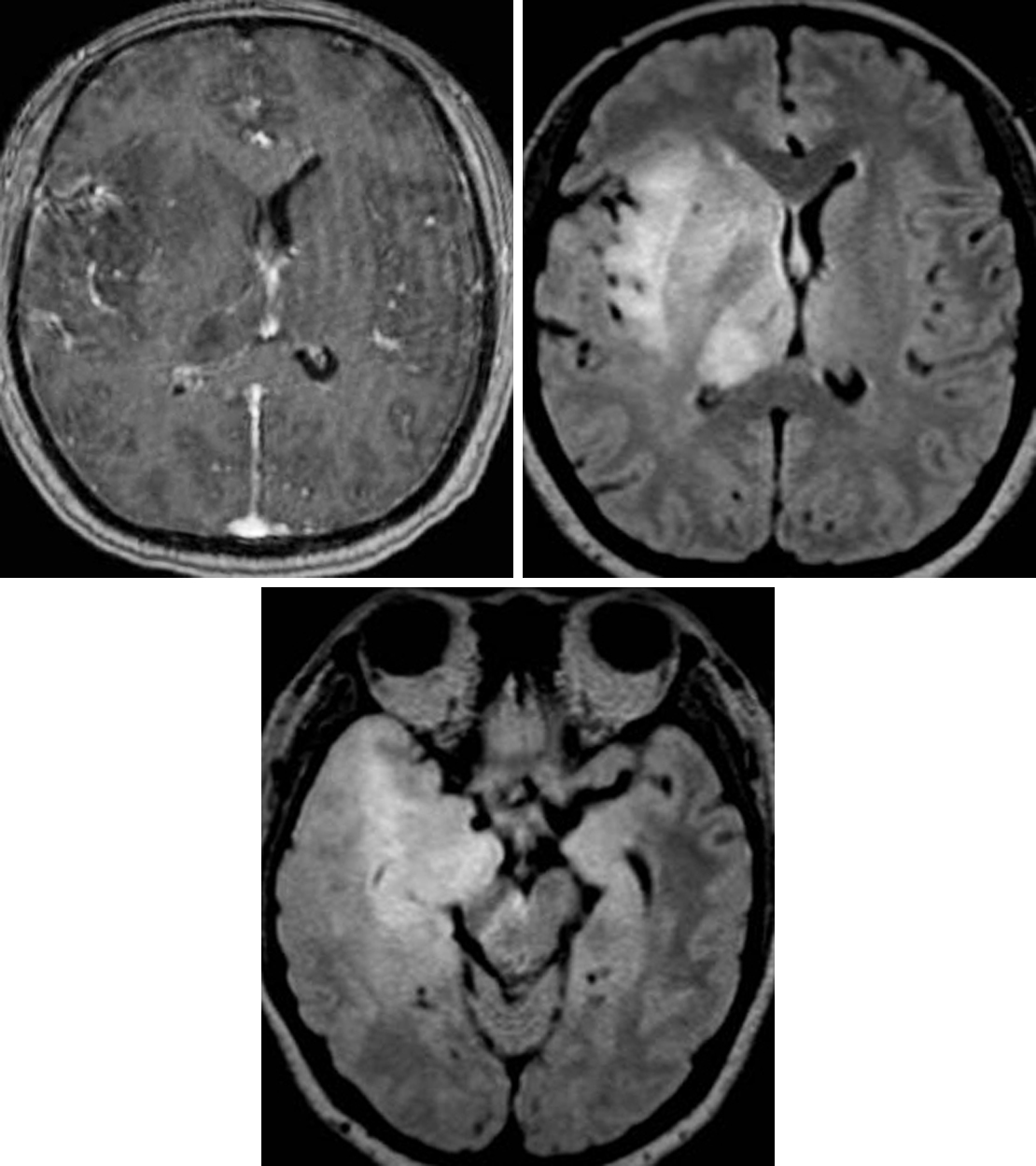 Figure 1: This diffuse infiltrative glioma was described as gliomatosis cerebri under previous classification systems. (Top Left and Right) Note the diffuse FLAIR involvement of the right temporal lobe, posterior right frontal lobe, right insula, right basal ganglia, and right thalamus. (Bottom) No enhancement is present in this lesion on T1WI after contrast administration.