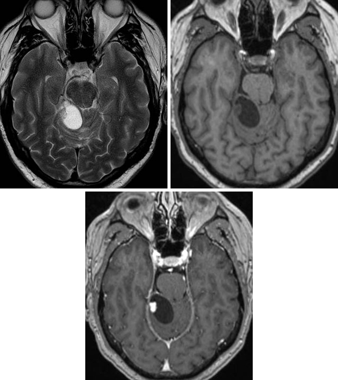Figure 1: (Top Left) The cystic appearance is typical of this HGBL on T2WI. Note the posterior fossa location. The mural nodule is visible on T1WI but becomes much more evident after administration of intravenous contrast (bottom) due to its avid enhancement. The lack of enhancement in the cystic rim is also typical.