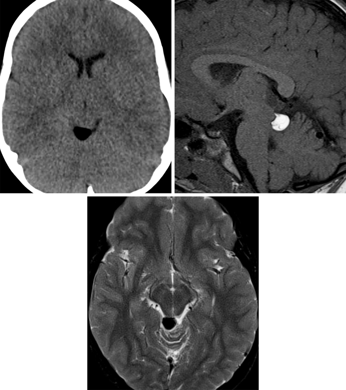 Figure 1: This tectal plate lipoma demonstrates low density of fat on CT imaging (top left) and hyperintensity on T1WI (top right). (Bottom) Fat-suppression techniques should make the lesion appear dark, as on this axial T2-weighted fat-saturated sequence.