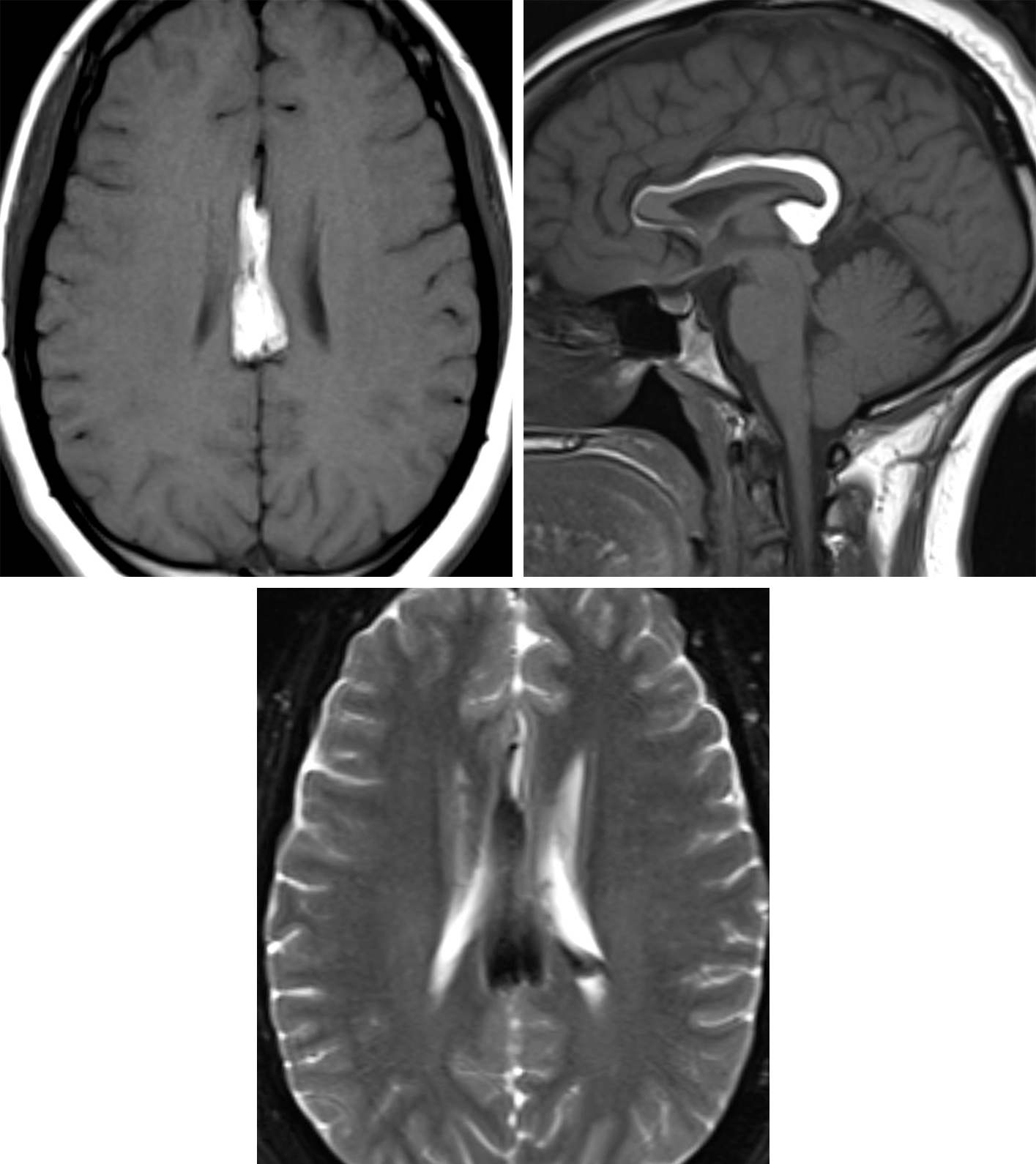 Figure 2: Axial (top left) and sagittal (top right) T1-weighted images demonstrate an intrinsically T1 hyperintense pericallosal mass that is suppressed on T2-weighted fat-saturation imaging (bottom). The appearance and location are classic for intracranial lipoma, resulting from a developmental failure of the meninx primitiva to involute.