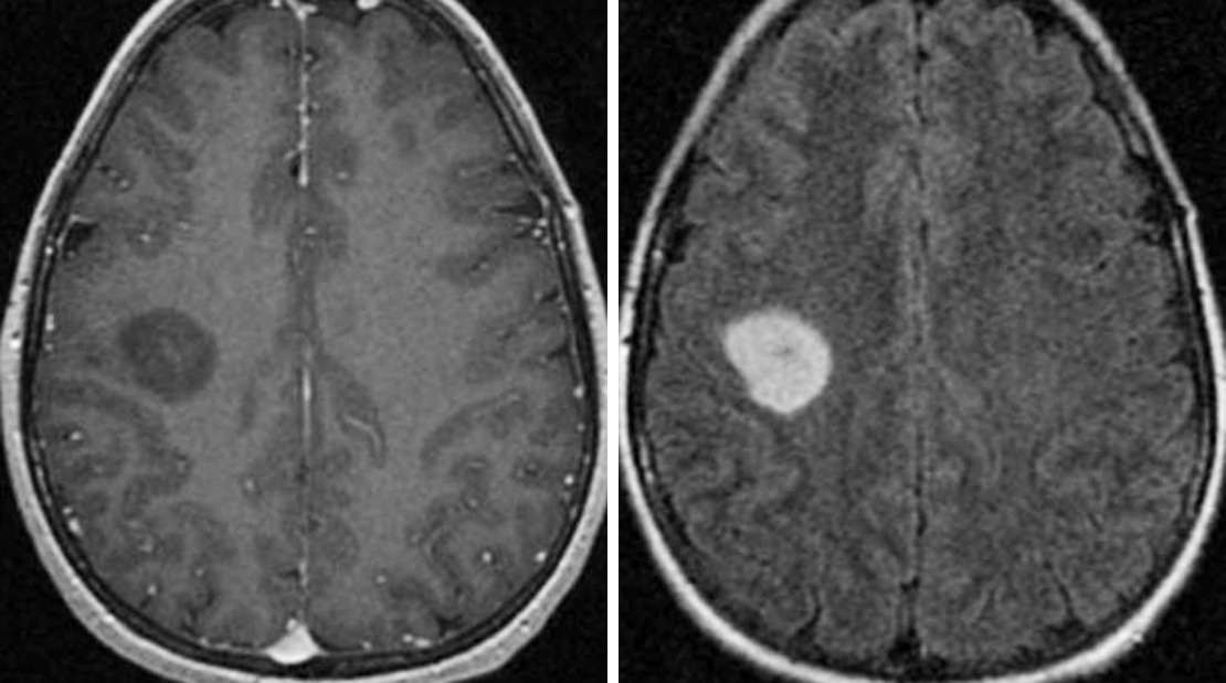 Figure 1: T1-weighted postcontrast (left) and axial FLAIR (right) images demonstrate a fairly circumscribed infiltrative lesion involving the cortex and white matter. This low-grade tumor is associated with no appreciable enhancement.