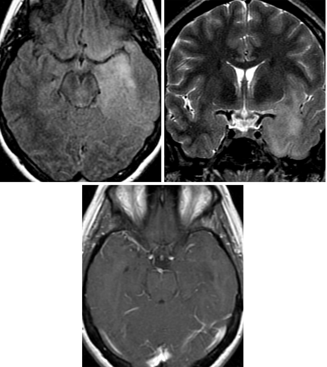 Figure 2: Axial FLAIR (top left) and coronal STIR (top right) images demonstrate a poorly defined infiltrative, hyperintense lesion involving the left temporal lobe, left insula, and inferior left frontal lobe. (Bottom) T1WI after contrast administration shows no contrast enhancement of this low-grade astrocytoma.