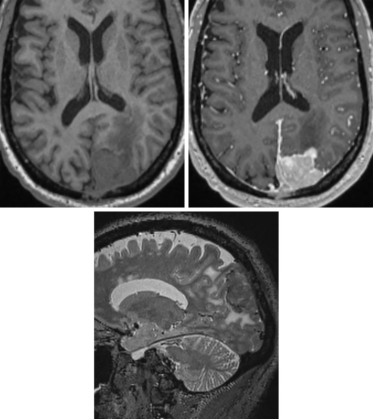 Figure 2: (Top Right) Thought more difficult to see on T1-weighted axial imaging, this left parieto-occipital convexity MM demonstrates bright enhancement on postcontrast T1-weighted imaging. The irregular contour is more typical of MM than of benign meningioma. (Bottom) Sagittal T2-weighted imaging also demonstrates hyperintense surrounding edema, a feature that is often seen in benign meningioma but should also raise suspicion for a higher-grade lesion.