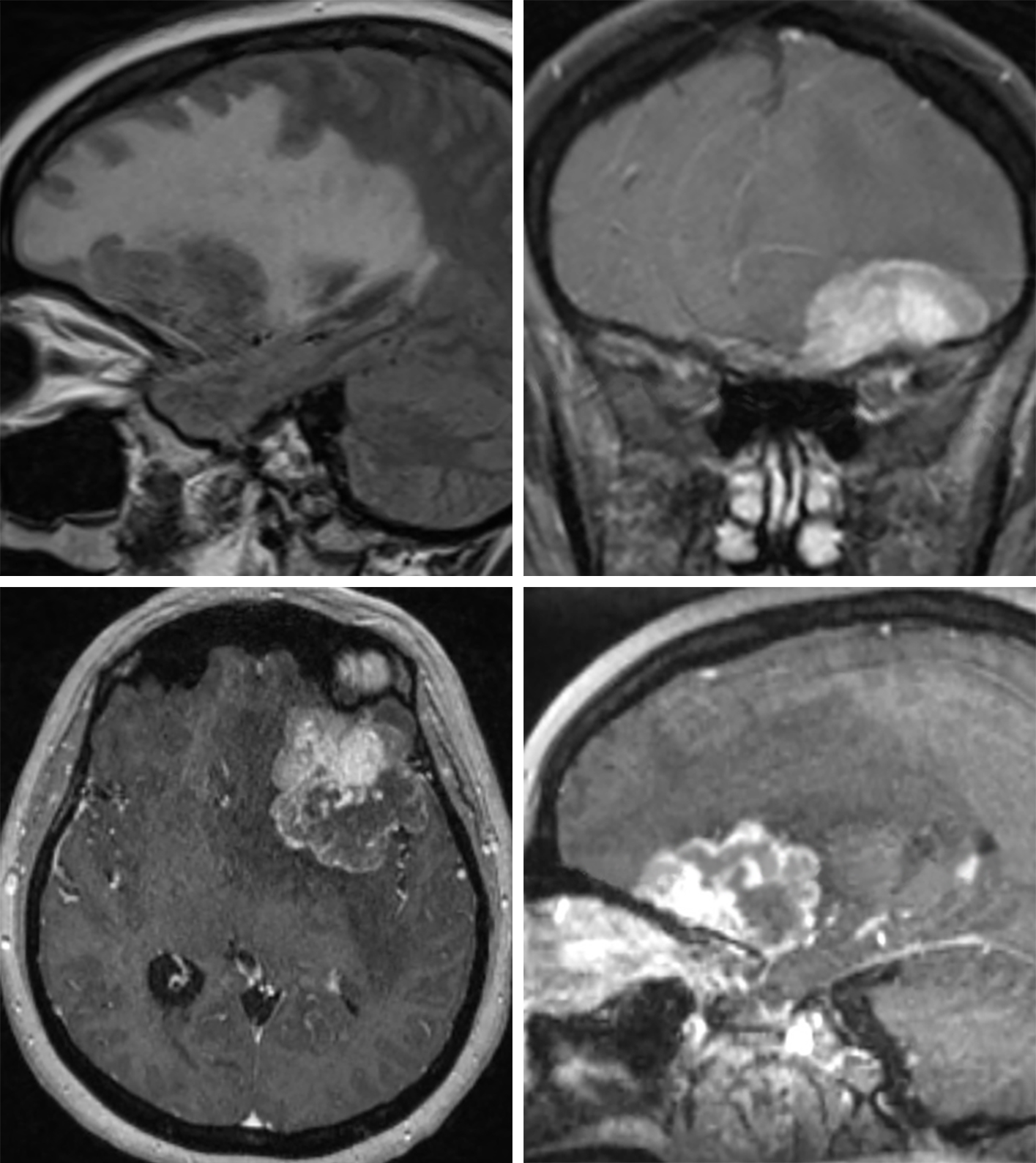 Figure 6: (Top Left) This dura-based metastasis along the inferior aspect of the left frontal lobe is causing a tremendous amount of hyperintense edema on this sagittal FLAIR image. Coronal (top right), axial (bottom left), and sagittal (bottom right) postcontrast T1-weighted images show this lesion to have bright enhancement and a broad dural base, a finding more typically seen with meningioma, a common mimic of metastatic disease.