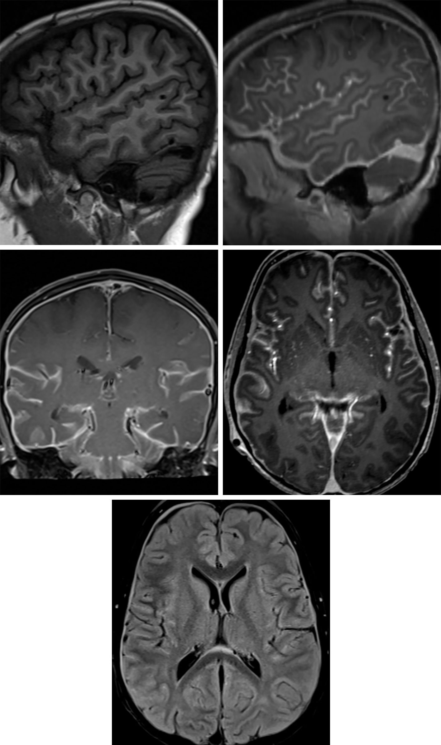 Figure 8: The difference between sagittal T1-weighted precontrast (top left) and postcontrast (top right) images is striking in this patient with leptomeningeal metastatic disease, with diffuse enhancement throughout the cerebral sulci that is also visible on coronal (middle left) and axial (middle right) contrast-enhanced images. Scattered hyperintense sulci are also visible on FLAIR imaging (bottom), along with reactive or metastatic thickening of the dura. Leptomeningeal metastatic disease is often very nodular but can sometimes be smooth, as in this patient.