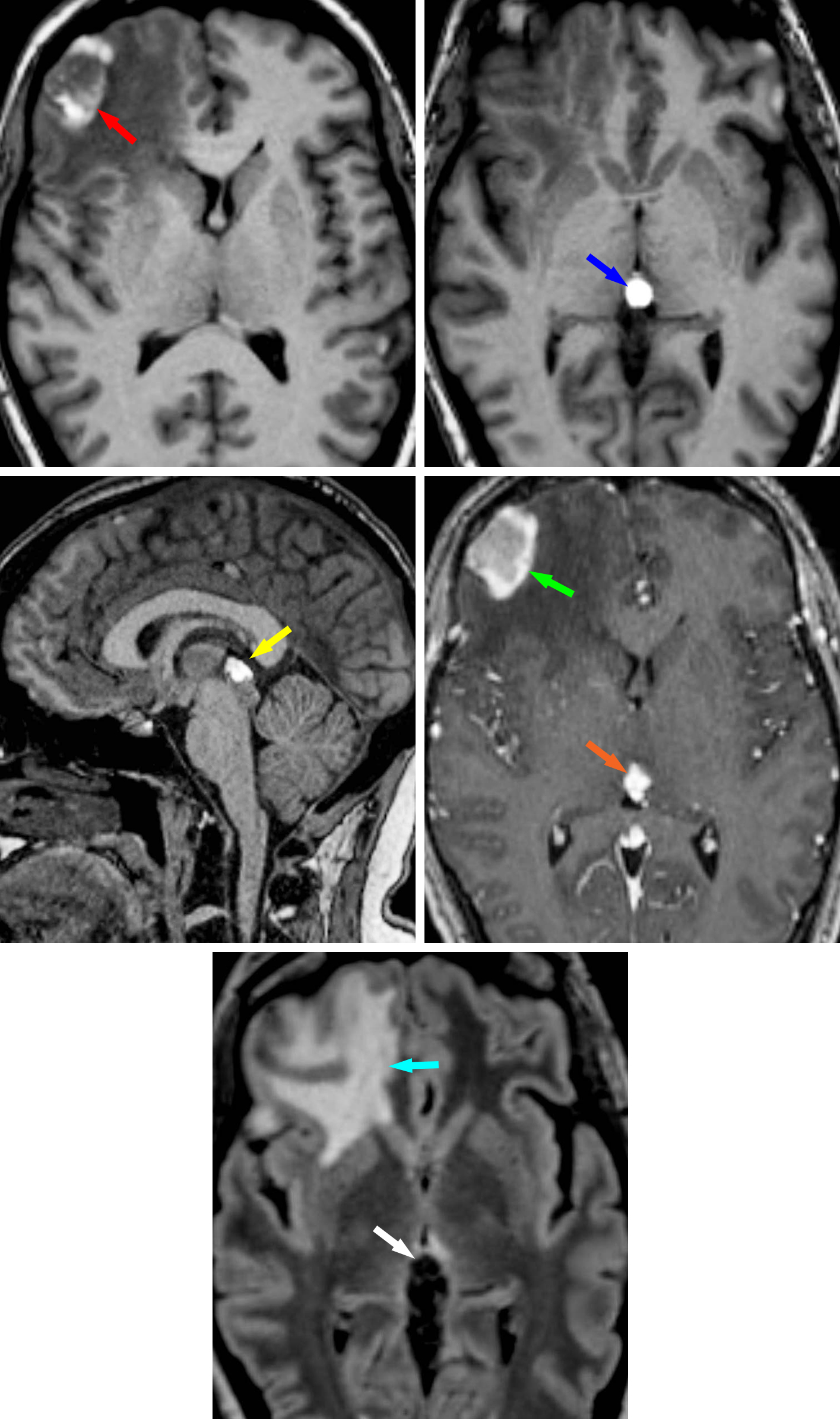 Figure 10: Pineal metastasis. In this patient with a history of melanoma presenting with headache, there is evidence of right frontal parenchymal and pineal metastases. Noncontrast T1-weighted axial images demonstrate the hyperintense right frontal metastasis (top left, red arrow) and the hyperintense pineal metastasis (top right, blue arrow). (Middle Left) The pineal metastasis is also visible on a sagittal T1-weighted image (yellow arrow). The high T1-weighted signal is a common feature of melanoma metastases. (Middle Right) An axial T1-weighted postcontrast image demonstrates these right frontal parenchymal (green) and pineal (orange) lesions as having additional hyperintense enhancement. (Bottom) On an axial T2 FLAIR image, the pineal lesion demonstrates low signal (white arrow), while the right frontal parenchymal lesion demonstrates characteristic associated subcortical vasogenic edema (teal arrow).