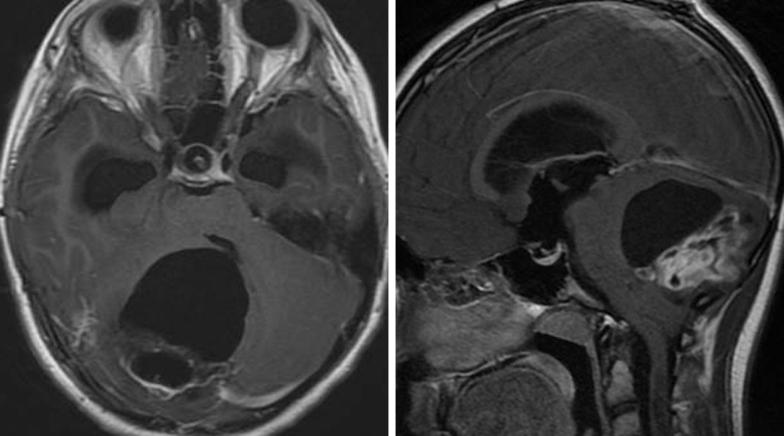 Figure 1: This posterior fossa PA has a large cyst with an adjacent mass (nodule). (Left) Axial image showing that this patient's cystic tumor is compressing and deviating the fourth ventricle, resulting in hydrocephalus. (Right) Sagittal postcontrast T1-weighted image showing the sometimes very heterogeneous enhancement apparent in the solid portion of the lesion that belies its underlying low-grade histology.