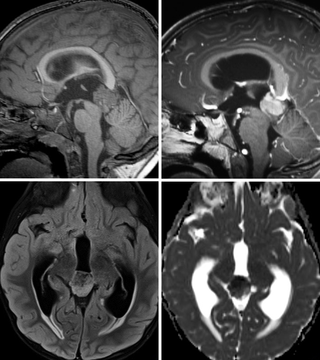 Figure 1: (Top Left) This pineoblastoma demonstrates invasion into the superior tectal plate on sagittal T1WI. (Top Right) After administration of intravenous contrast, the lesion demonstrates avid, heterogeneous enhancement. (Bottom Left) Axial FLAIR demonstrates hyperintensity typical of most tumors. (Bottom Right) This lesion has also caused obstructive hydrocephalus at the cerebral aqueduct. ADC imaging shows low-signal/restricted diffusion reflecting this lesion's hypercellularity.