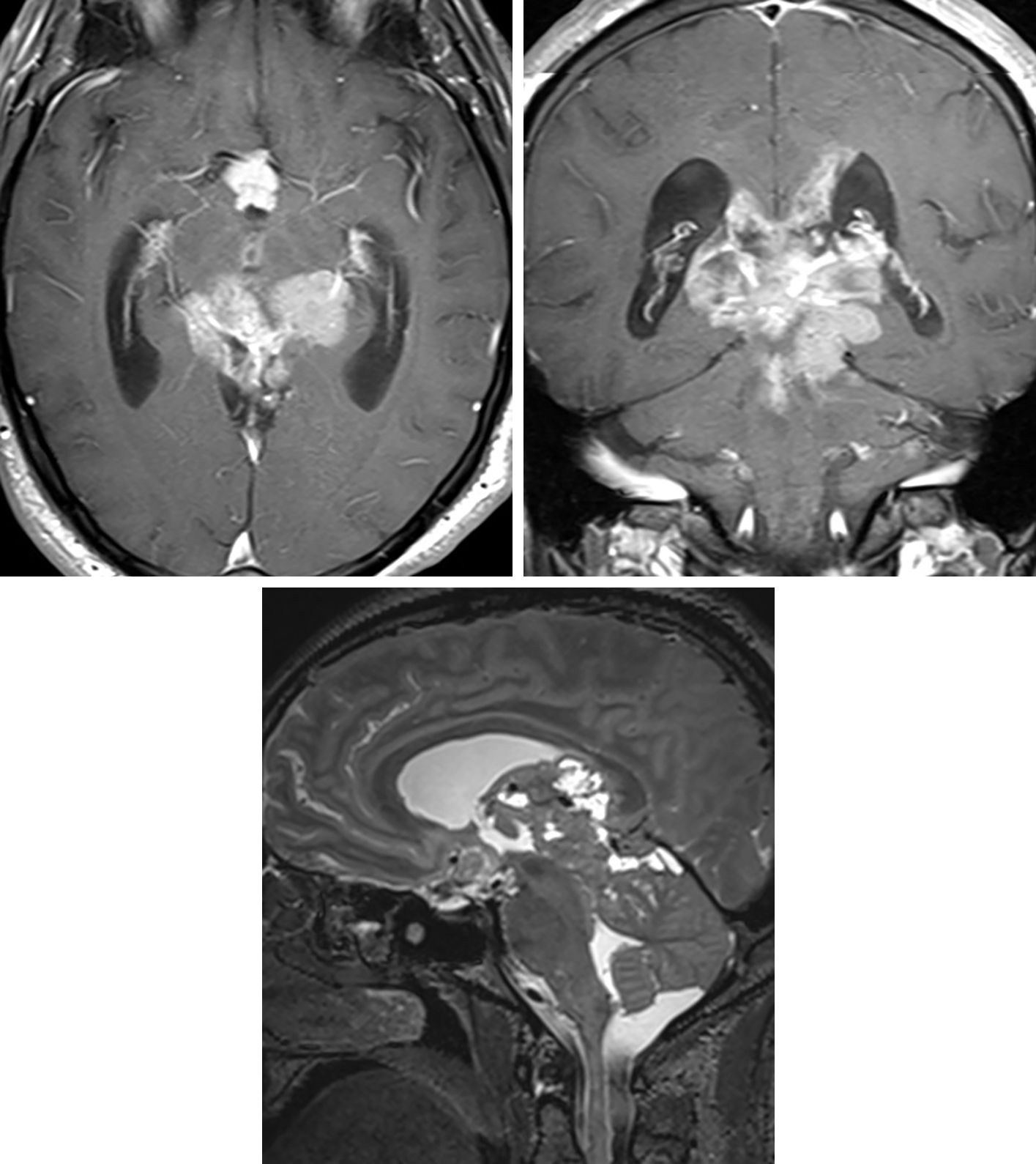 Figure 3: (Top Left and Top Right) Although centered in the pineal region, this heterogeneously enhancing lesion demonstrates the infiltrative appearance on axial and coronal postcontrast T1 imaging that can help to distinguish pineoblastoma from lower-grade primary pineal tumors. (Bottom) Cystic/necrotic changes are also visible in this large lesion on sagittal T2 imaging.