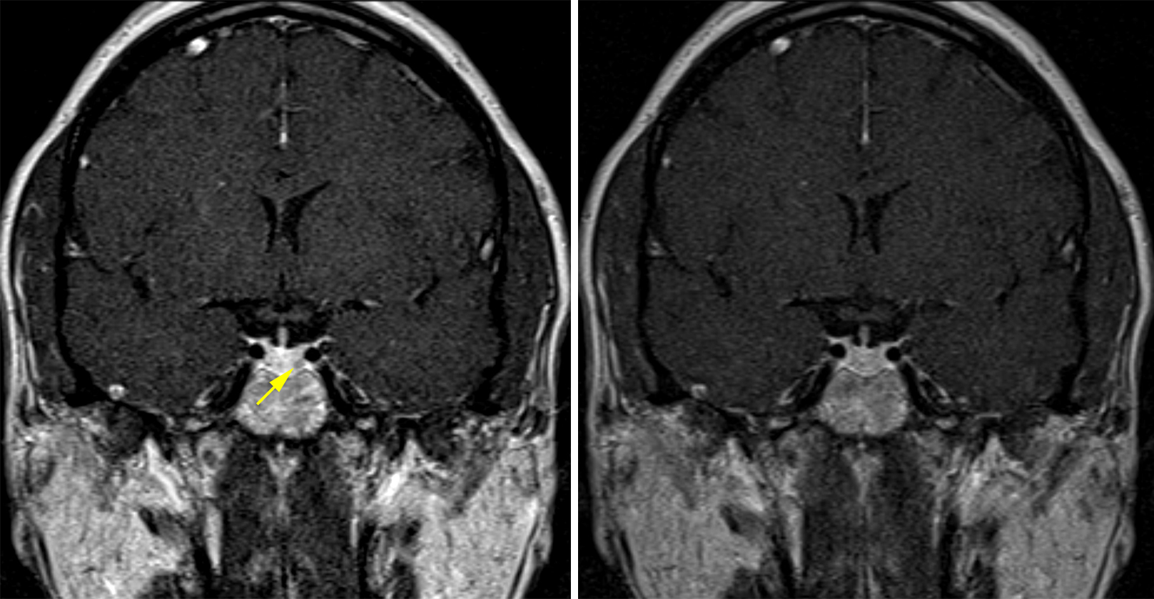 Figure 1: (Left) A tiny pituitary adenoma is visible on early postcontrast imaging as a nodule showing less enhancement than the surrounding pituitary tissue in the left inferolateral aspect of the pituitary gland (yellow arrow). (Right) This adenoma becomes invisible on the more delayed postcontrast imaging as the lesion and the pituitary gland become more similar in their degree of contrast enhancement.