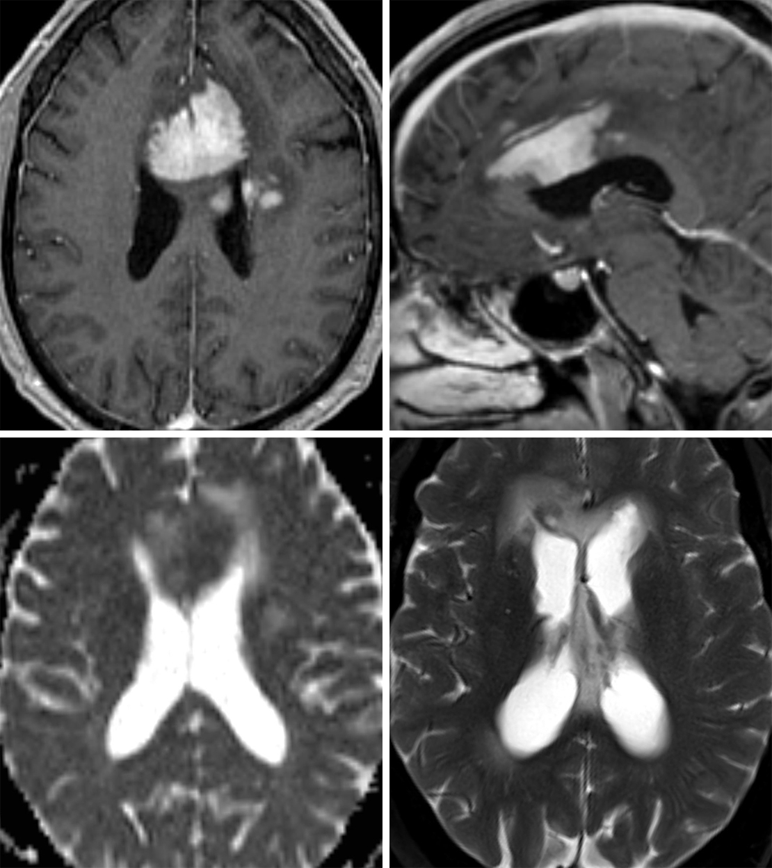 Figure 1: The patchy and solid enhancement of lymphoma on postcontrast T1WI (top row left, top row right) and abutment of an ependymal surface is typical in immunocompetent patients. This lymphoma crosses the midline through the anterior body of the corpus callosum. Low T2 (bottom row right) and ADC (bottom row left) signal indicate hypercellularity. This lymphoma is also inciting a moderate amount of T2-hyperintense surrounding vasogenic edema.