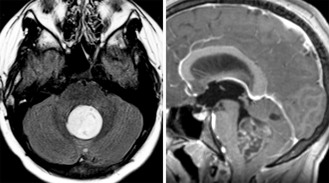Figure 1: This mildly complex, circumscribed T2-FLAIR hyperintense rosette-forming glioneuronal tumor fills and expands the fourth ventricle (left), contributing to hydrocephalus in this patient, but causes little edema. The tumor demonstrates a heterogeneous internal pattern of enhancement (right).