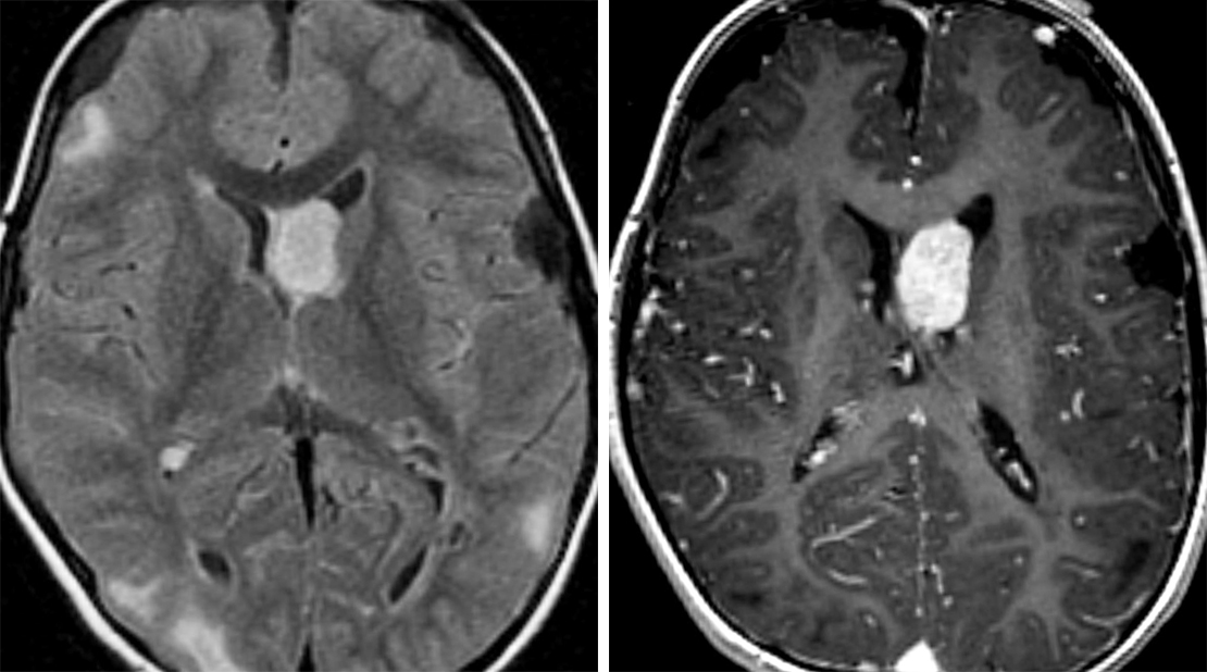 Figure 1: This subependymal giant-cell astrocytoma (SEGA) is present in its typical location at the foramen of Monro. This lesion is larger than should be seen for other subependymal nodules in tuberous sclerosis. (Left) A FLAIR image demonstrates multiple subcortical hyperintense tubers. A hyperintense right posterior periventricular nodule is also visible. Other calcified subependymal nodules are less evident. (Right) Postcontrast T1WI demonstrates the avid enhancement typical of SEGAs.