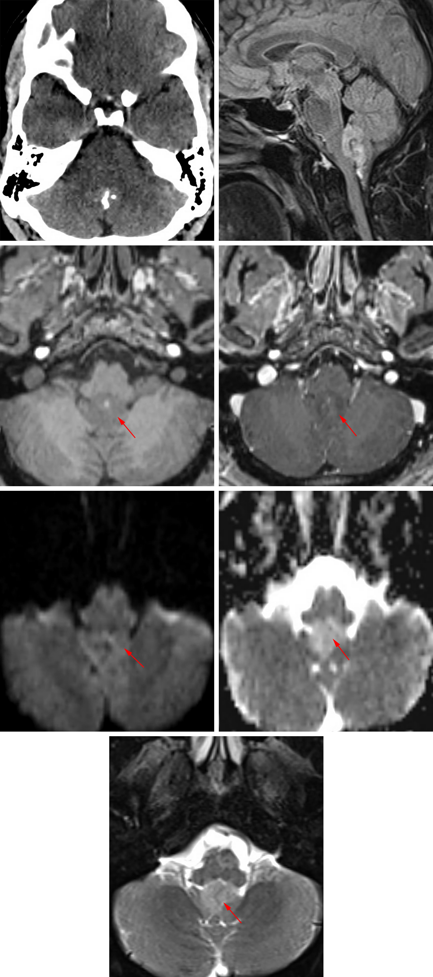 Figure 3: Axial non-contrast head CT demonstrates a calcified lesion in the 4th ventricle. Sagittal FLAIR (top row right), axial T1 without contrast (second row left), axial T1 post-contrast (second row right), DWI (third row left), ADC (third row right), and axial T2FS (bottom row) images demonstrate a non-enhancing mass arising from the floor of the 4th ventricle without restricted diffusion. The appearance and location of this lesion are classic for subependymoma.