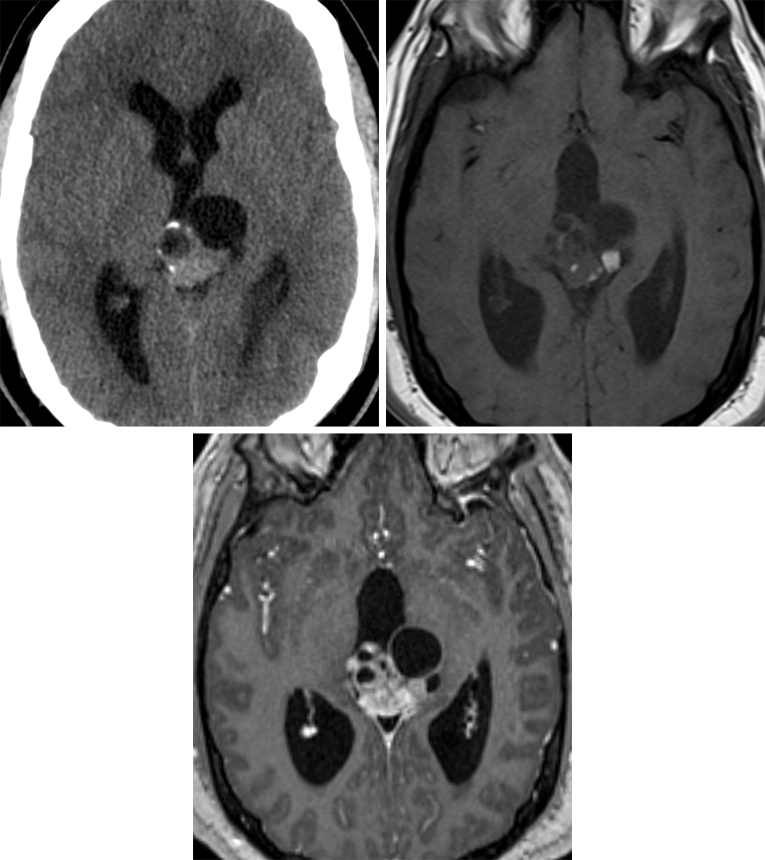 Figure 1: This complex pineal-region teratoma demonstrates areas of solid and cystic change and calcification on CT (top left) and areas of hyperintense fat signal intensity on the T1-weighted MR image (top right). Heterogeneous enhancement is a hallmark finding that illustrates the complexity of teratomas on T1 after contrast administration (bottom).