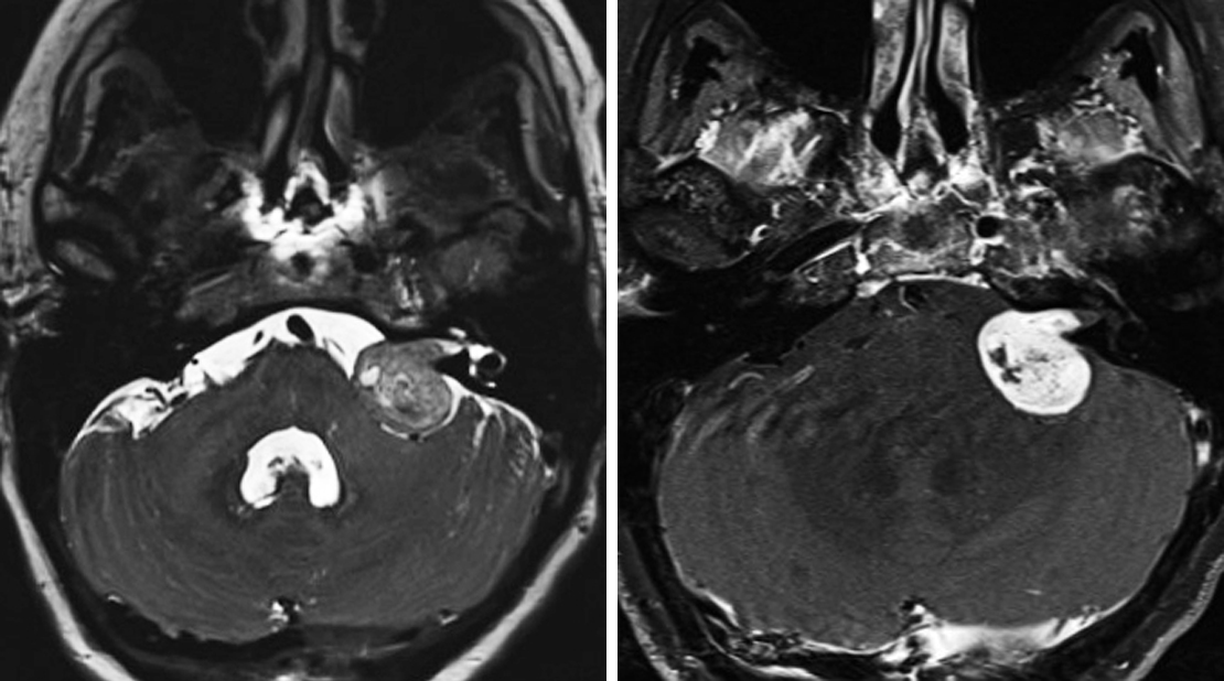 "Figure 1: The most common intracranial location of schwannoma is the CPA, as in this patient. (Left) Cystic change is quite common in larger schwannomas on T2WI. (Right) Schwannomas are also typically avidly enhancing on postcontrast T1WI. This schwannoma can be differentiated from meningioma on the basis of this cystic change and the clearly delineated extension into the IAC. IAC remodeling and widening can also be present. The lack of a meningiomal ""dural tail"" is also helpful."