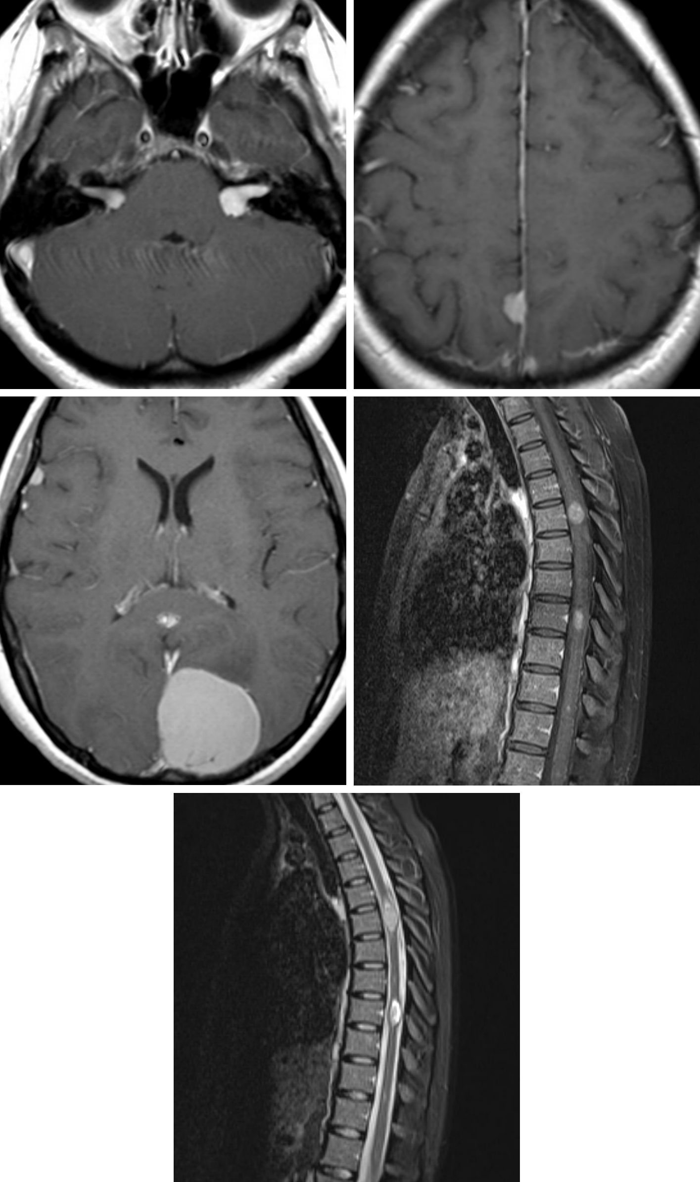Figure 2: Axial T1-weighted postcontrast images demonstrate bilateral vestibular schwannomas (top left) and meningiomas (top right and middle left). Sagittal T1-weighted postcontrast (middle right) and T2-weighted (bottom) images demonstrate enhancing, expansile, centrally located intramedullary lesions within the spinal cord compatible with ependymomas in this patient with NF2.