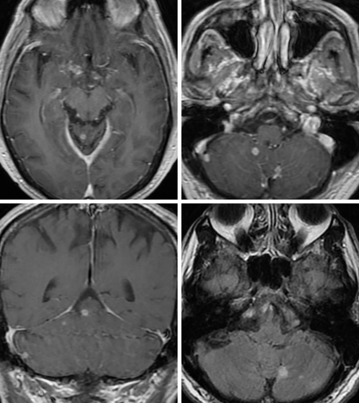 Figure 2: Axial (top row left, top row right) and coronal (bottom row left) contrast-enhanced T1 images demonstrate numerous tiny enhancing nodules along the basal cisterns and within and along the cerebellum reflecting the leptomeningeal disease and occasional parenchymal abscesses that are common with coccidiomycosis and can mimic small metastases. Axial FLAIR image (bottom row right) also shows the hyperintense local edema associated with small parenchymal cerebellar abscesses.