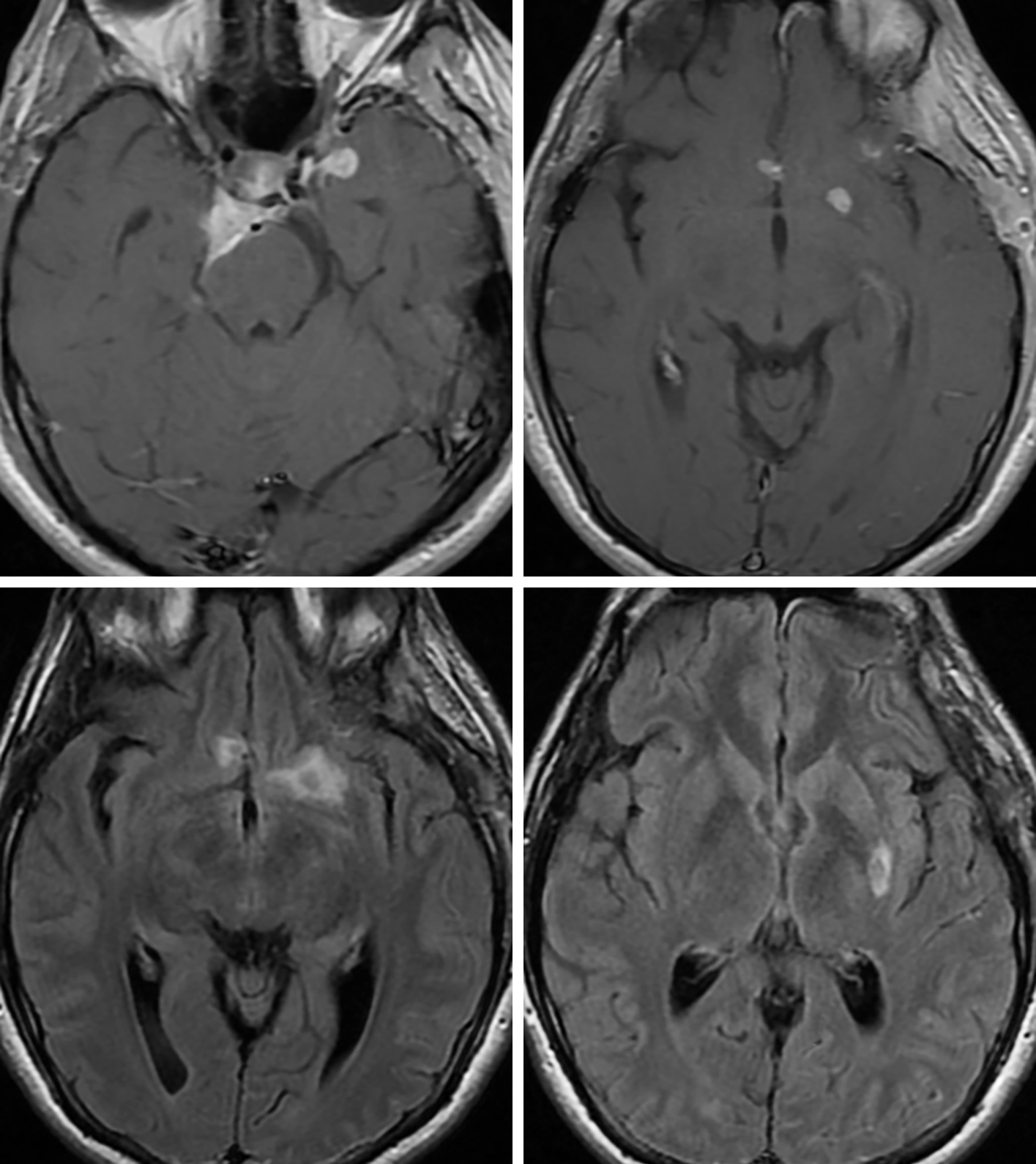 Figure 3: Axial T1-weighted postcontrast images demonstrating prepontine cistern and medial left temporal enhancing coccidiomycosis involvement (top left) and enhancing infectious tissue along the medial anterior left lobe, in the right posterior orbital gyrus and in the left basal ganglia (top right), which can also be seen in dura-based and parenchymal metastatic disease. The parenchymal lesions also demonstrate nonspecific surrounding FLAIR hyperintense edema (bottom left and bottom right) that would also be typical of parenchymal metastatic disease.