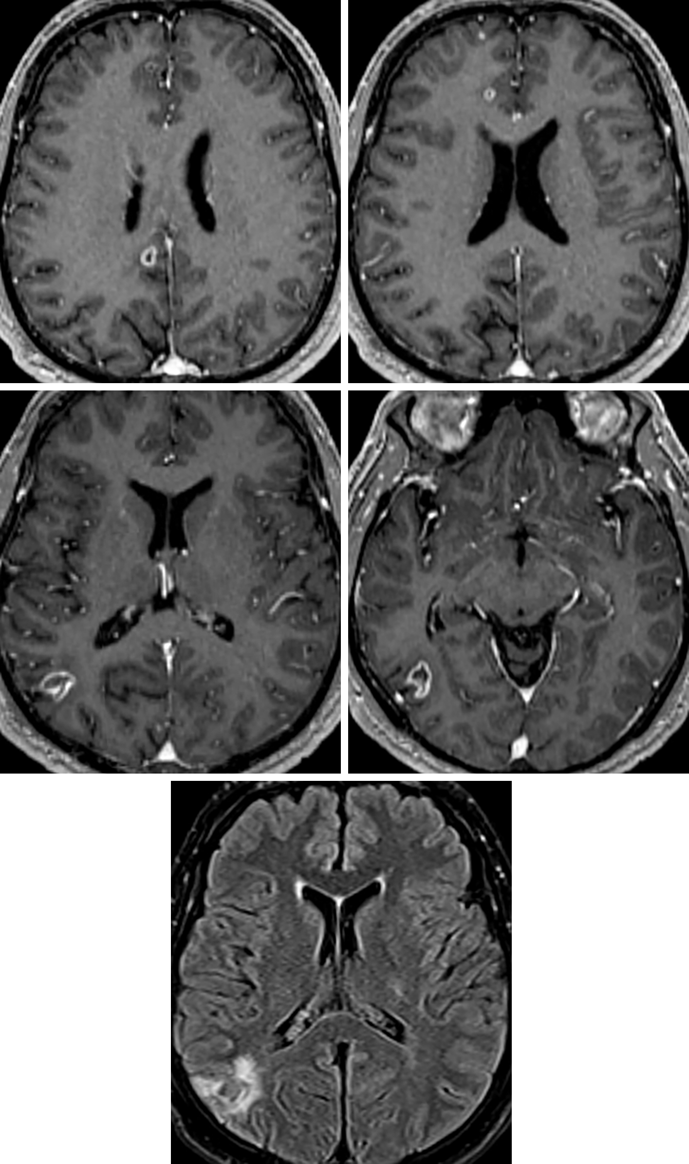 Figure 2: Multiple peripherally enhancing neurocysticercosis lesions (top row left-middle row right) look remarkably similar to brain metastases, with a similar amount of associated hyperintense vasogenic edema on FLAIR (bottom row). The patient's clinical scenario and the presence of an eccentric mural nodule in some of the lesions (middle row left) can help to narrow the differential.