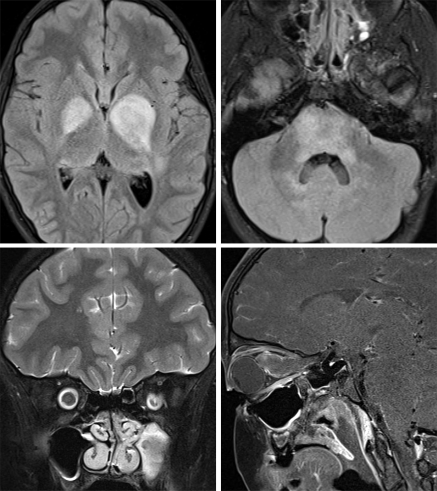Figure 2: Axial FLAIR images through the basal ganglia (top row left) and pons (top row right) demonstrate expansile hyperintense lesions most compatible with NF dysplasias, a tumor mimic. Low grade tumors may also be present in NF 1, including optic nerve glioma seen as right greater than left optic nerve enlargement on coronal T2FS (bottom row left) and sagittal T1 post-contrast (bottom row right) images.
