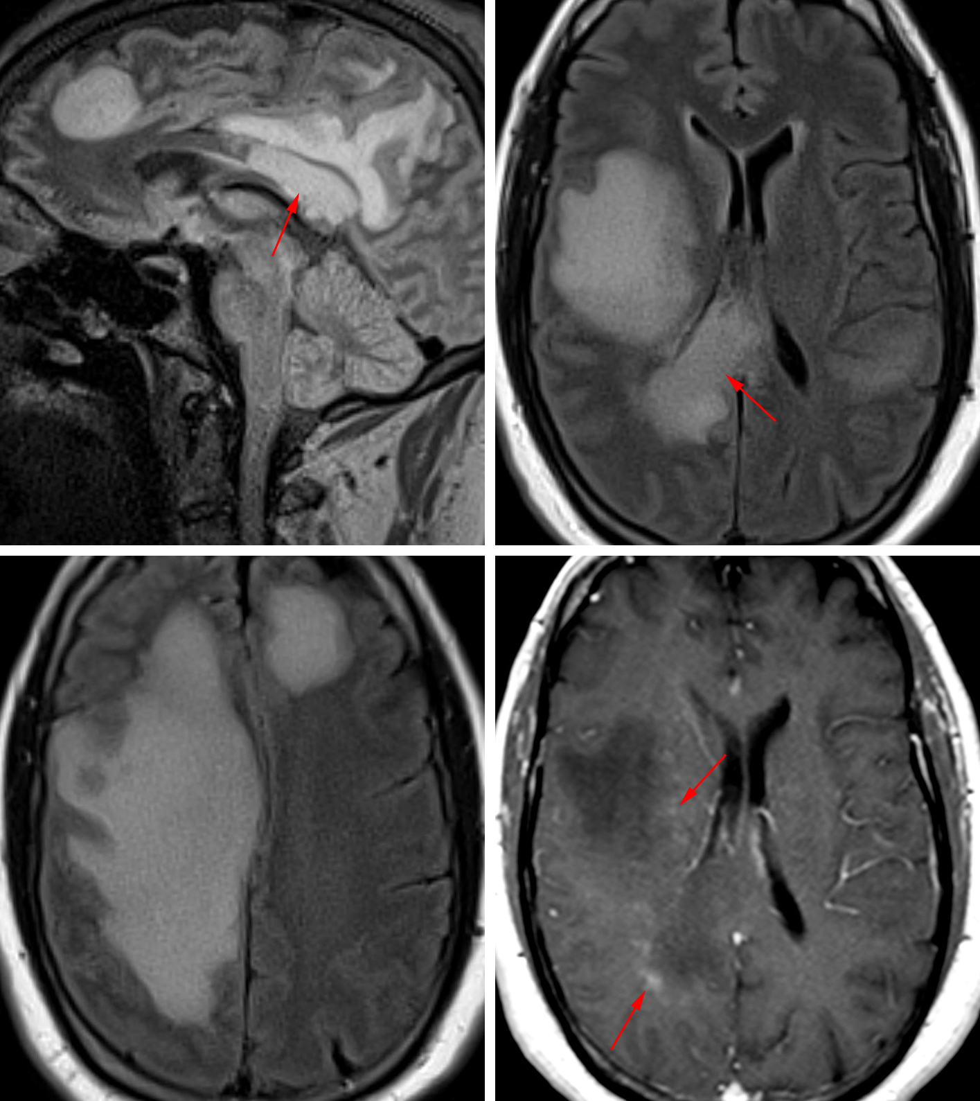 Figure 2: Tumefactive demyelinating lesions are often large and mass-like, demonstrating FLAIR hyperintensity throughout the lesion (top row left – sagittal, top row right, bottom row left - axial). These lesions commonly involve the corpus callosum (top row left, top row right - arrow) and are often confused for lymphoma or glioblastoma. As is common for lesions of demyelination, there is vague incomplete peripheral enhancement on post-contrast imaging (bottom row right).