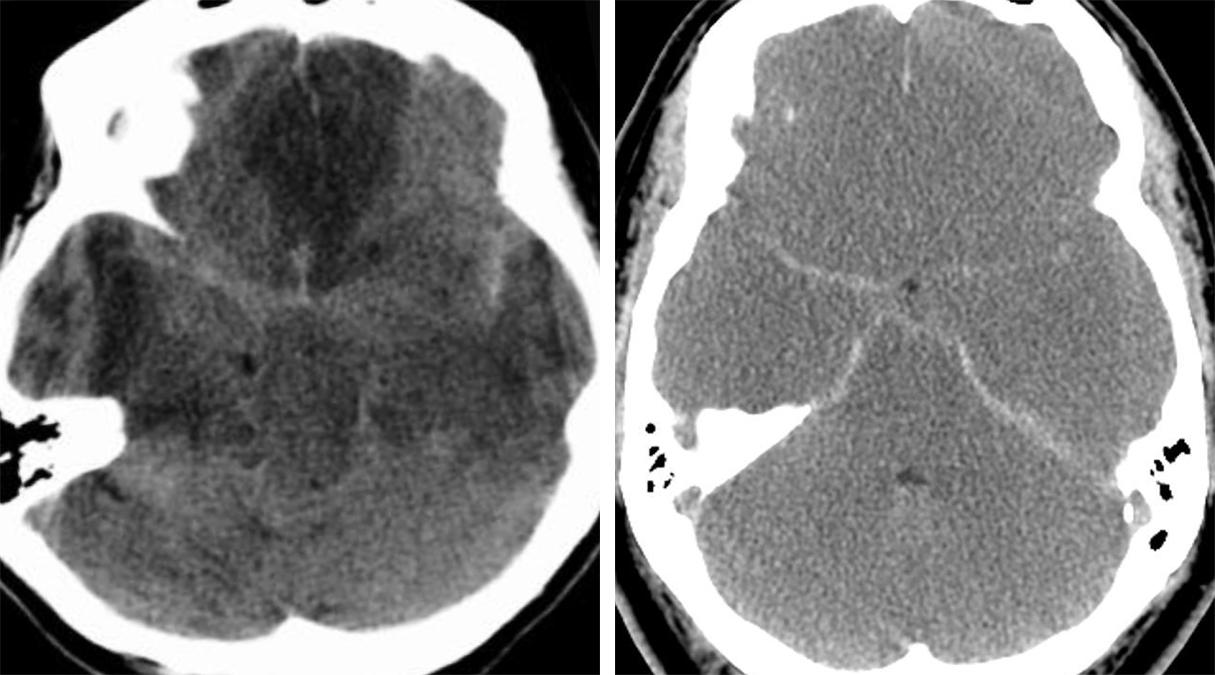 Figure 4: Pseudo-SAH sign. Axial NECT images of the head of 2 different patients demonstrate diffuse cerebral edema indicated by diffuse hypoattenuation of the brain parenchyma. Note the relative hyperdensity of the normal cerebral arteries within the subarachnoid space, mimicking SAH.