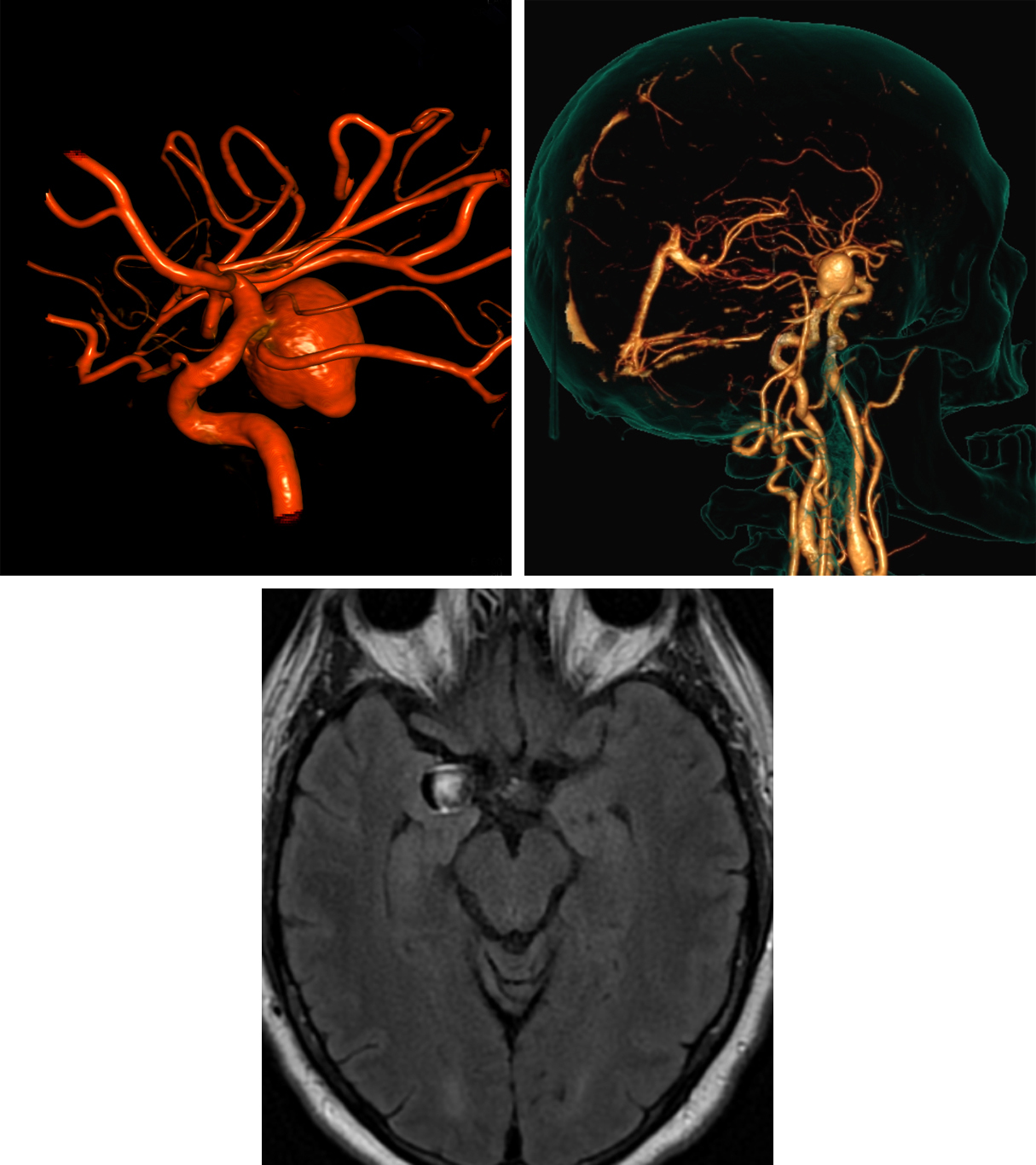 Figure 8: Posterior Communicating Artery Aneurysm – This P-Comm Aneurysm appears pedunculated but is clearly shown to incorporate the proximal (carotid) aspect of the posterior communicating artery on this 3-D reformat from DSA (top row left). A small bulbous outpouching from the aneurysm apex portends a higher risk for hemorrhage. CT Angiography images can be reformatted (top row right) to create images that may be helpful for anatomic localization for the neurosurgeon planning to clip an aneurysm. Axial FLAIR MR image (bottom row) demonstrates heterogeneity of this aneurysm due to flow-related signal changes.