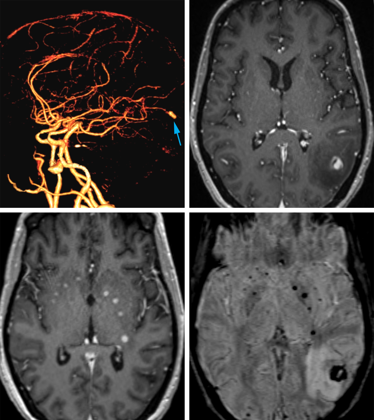 Figure 9: Mycotic Aneurysm – The 3-D reformatted CT Angiography (top row left) shows an aneurysm in an unusual location arising from the distal posterior cerebral artery (arrow). The contrast-enhanced T1-weighted MRI (top row right) also demonstrates the location of this enhancing aneurysm in the lateral left occipital lobe with surrounding hypointense edema. More inferiorly, contrast-enhanced MRI (bottom row left) also shows several small enhancing abscesses in and around the basal ganglia, often arising contemporaneously with mycotic aneurysms due to their shared etiology. These lesions are often associated with hemorrhage, as demonstrated by the low signal intensity areas on SWI MR image (bottom row right).