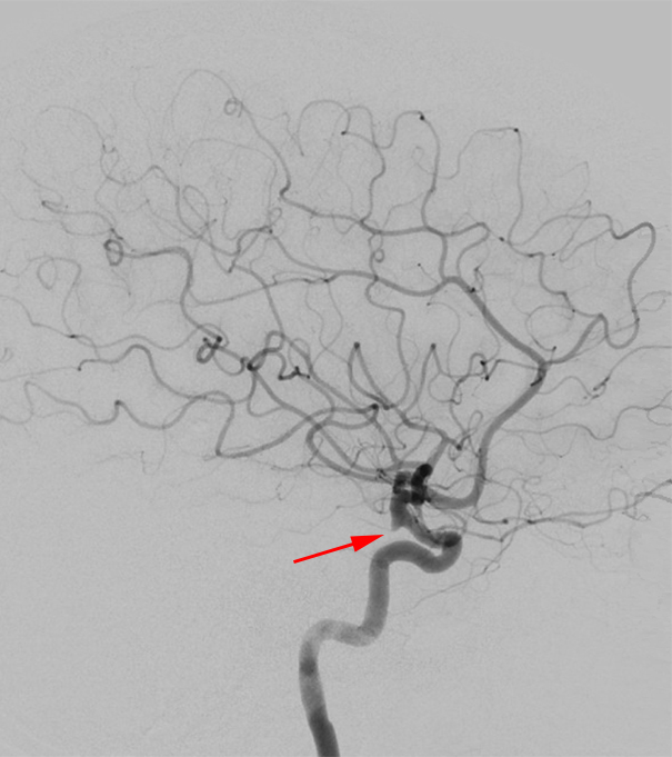 Figure 6: On this lateral digital subtraction angiography image, the small infundibulum is clearly visible at the origin of the posterior communicating artery from the distal internal carotid artery (arrow), but even without the visible presence of the posterior communicating artery, small focal outpouching in this area implies an infundibulum rather than aneurysm.