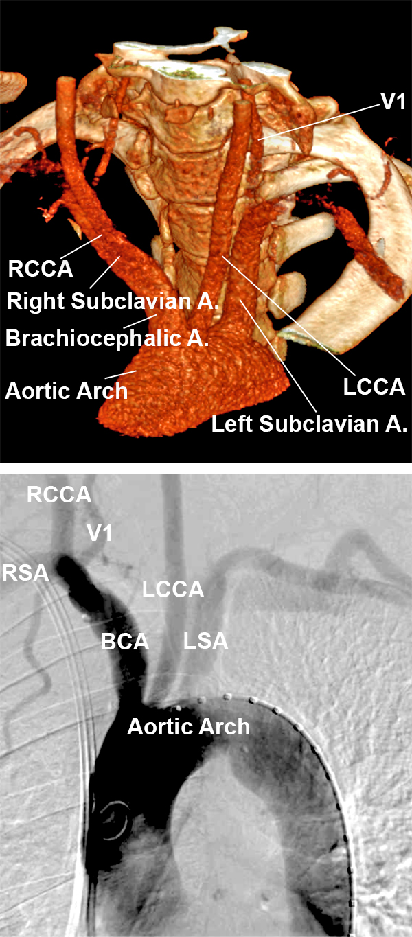 Figure 1: CT Angiogram reconstruction of the aortic arch (left). DSA of the aortic arch and its large branch vessels (right).