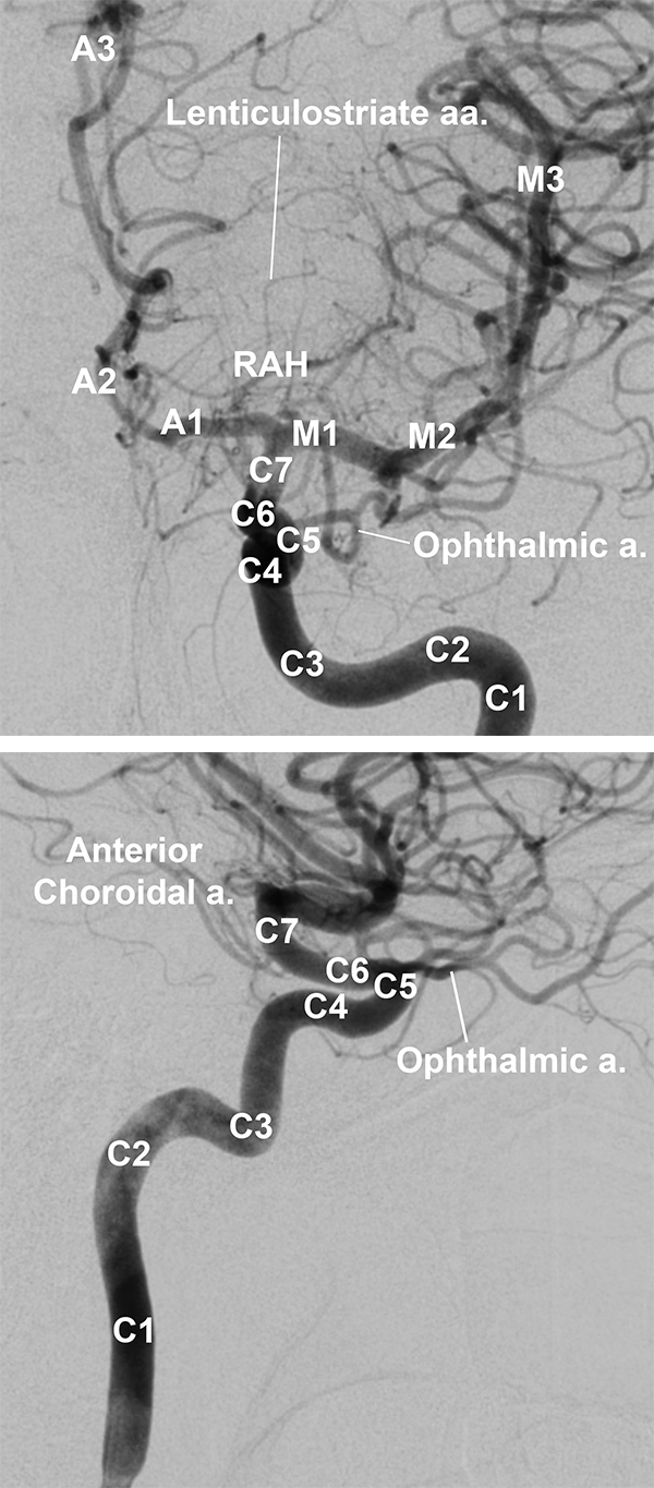 Figure 2: Segments of the right internal carotid artery on frontal (left) and lateral (right) views by DSA. Proximal anterior and middle cerebral artery branches more clearly visible on frontal (left) view.