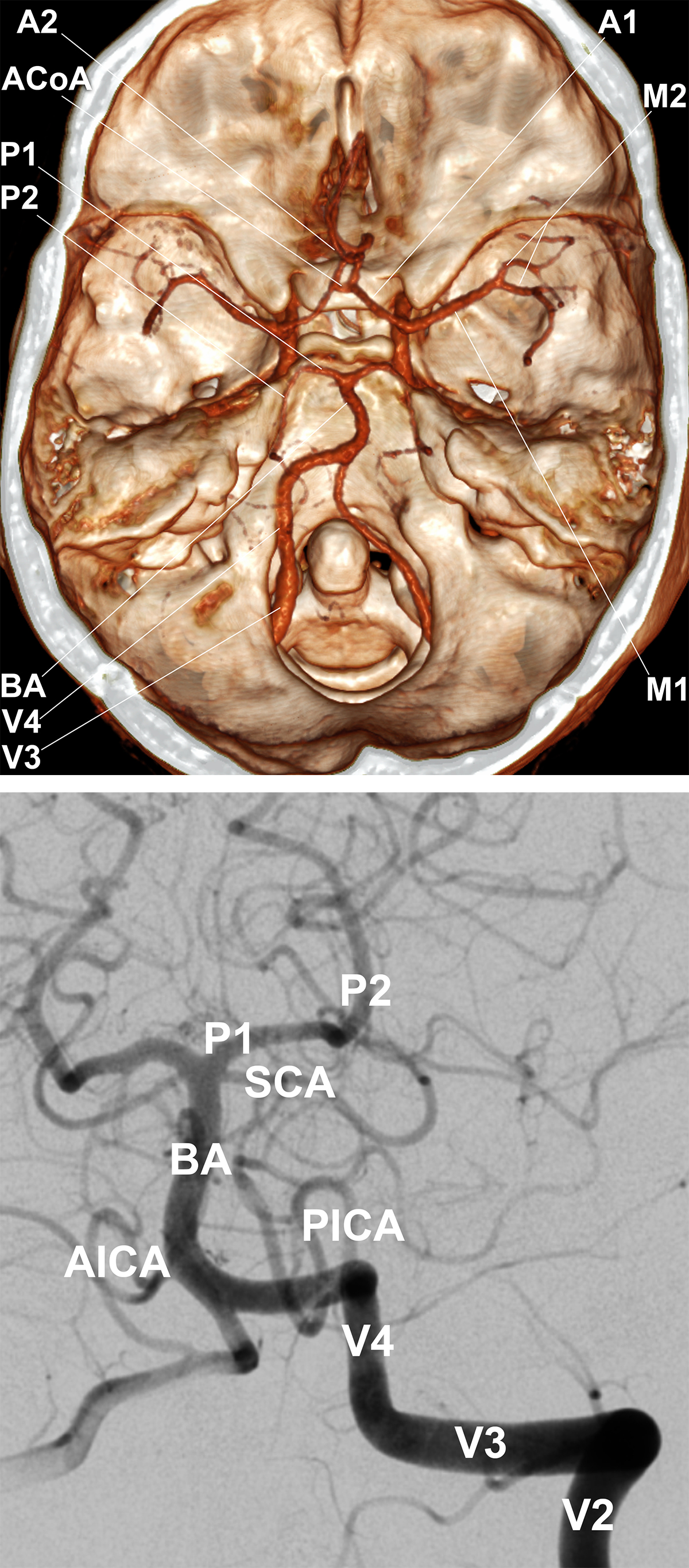 Figure 6: Reconstruction of CT Angiography demonstrating the Circle of Willis and its more distal branches (left). The distal cervical and intracranial posterior circulation by DSA (right).