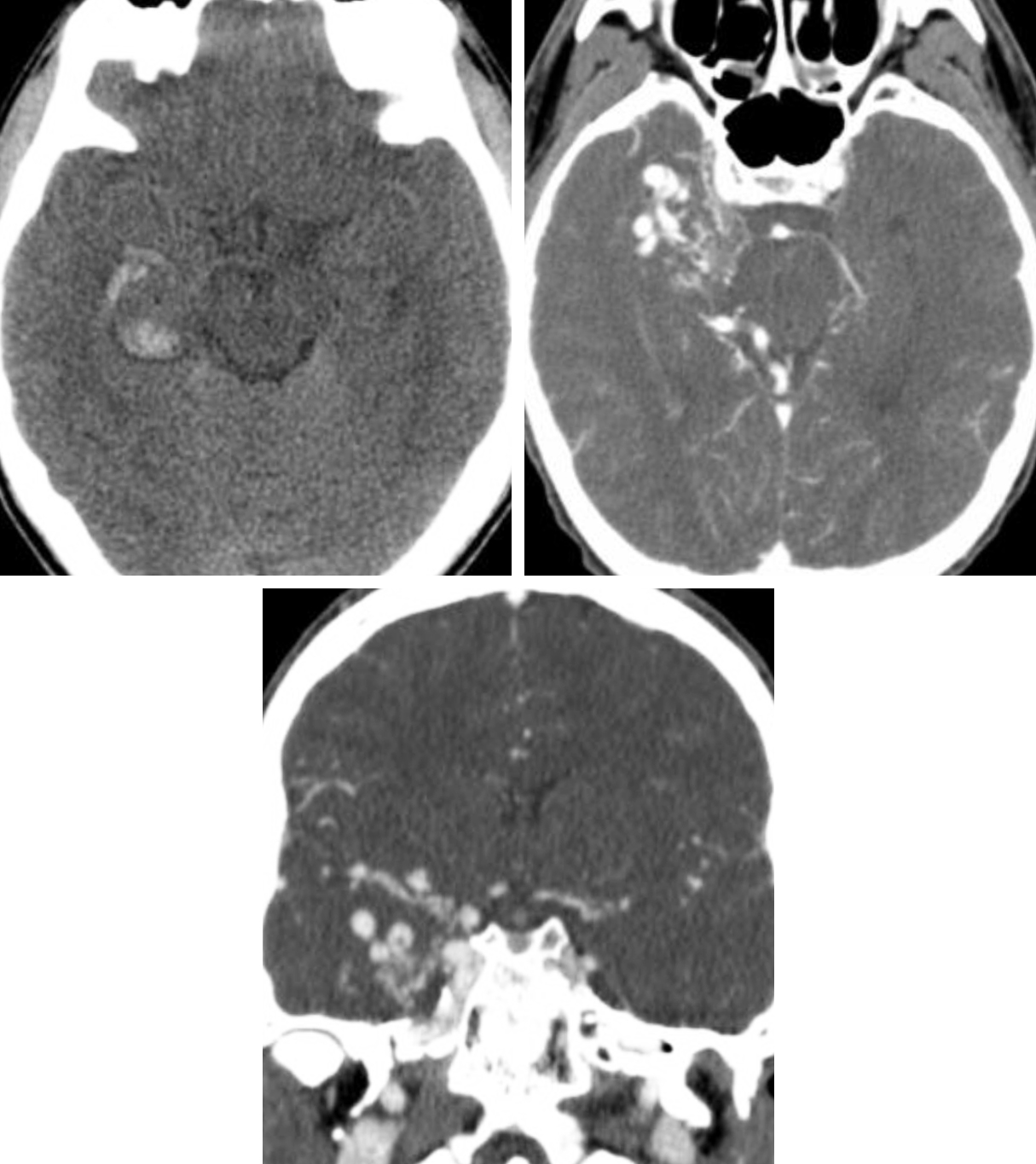 Figure 1: (Top Left) Typical NECT appearance of an AVM with relatively ill-defined isodense to hyperdense vessels replacing brain parenchyma with evidence of small adjacent parenchymal hemorrhage in the right temporal lobe. (Top Right and Bottom) CT angiography (CTA) increases the conspicuity of the underlying AVM, revealing abnormal right temporal nidiform vessels.