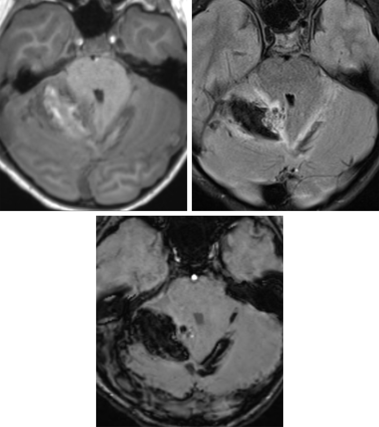 Figure 2: T1-weighted (top left), FLAIR (top right), and SWI (bottom row) axial MR images illustrate mixed-stage blood products of subacute parenchymal hematoma within the superior right cerebellar hemisphere with associated SAH within the adjacent cerebellar sulci and crossing midline. Nidiform flow voids are present at the medial aspect of the hematoma on the FLAIR image, consistent with an underlying cerebellar AVM.