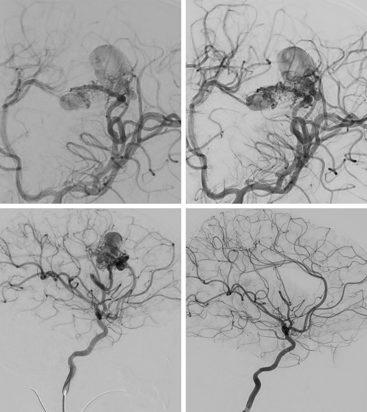 Figure 6: Imaging of the same 6-year-old girl with seizure shown in Figure 5. Left internal carotid arteriography (top left) and left anterior oblique (top right) stereoscopic images (stereo image pair obtained at slightly different projection angles, viewed by crossing eyes) and lateral projection image (bottom left) illustrate the complexity of the left prerolandic AVM with direct supply from the prefrontal division of the left middle cerebral artery and en passant supply from the precentral division and venous drainage via 2 main conduits, each associated with dilated venous varix. (Bottom Right) Left internal carotid arteriography lateral projection status post endovascular embolization (Onyx) and surgical resection demonstrates no residual arteriovenous shunting or nidiform vessels.