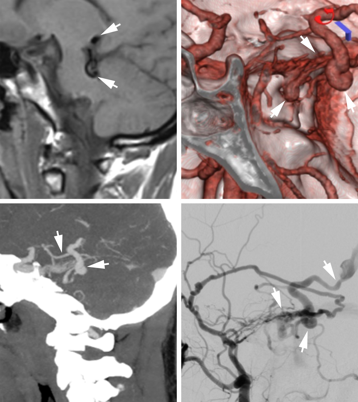 Figure 2: Right superior petrosal sinus DAVF, Cognard IIa+b. Top row: Sagittal T1W MRI (left), CTA 3D-reconstruction image (middle), and Sagittal CTA MIP reconstruction (right image) demonstrate focal dilated vessels (arrows). DSA (bottom row) confirms a right superior petrosal sinus DAVF, Cognard IIa+b (arrows) with arterial supply from the petrosquamosal division of the right middle meningeal artery via the basal tentorial artery as well as transosseous occipital branches and to a lesser extent by temporal branches of the middle meningeal artery. Venous drainage is into a prominent venous pouch with subsequent drainage into the superior petrosal sinus, petrosal vein and basal vein of Rosenthal.