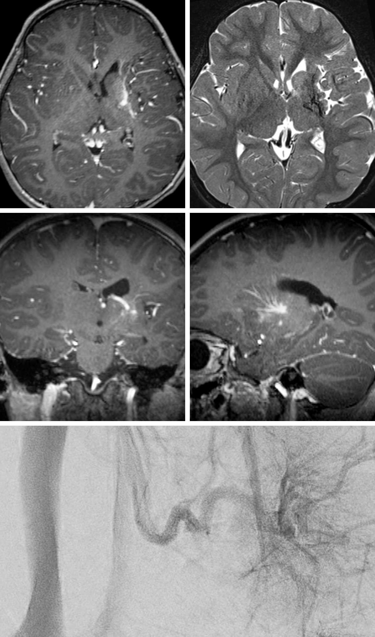 "Figure 2: 6-year-old female with seizure - ""evaluate for AVM"": MRI image series (left) identifies an abnormal cluster of vessels emerging from the left subinsular and left lentiform nuclei and converging at the near the ependymal surface of the left lateral ventricle. Oblique projection DSA image (right), left internal carotid injection (venous phase image) confirms a developmental venous anomaly with umbrella-like configuration of anomalous subinsular veins coalescing into a prominent subependymal vein without early venous opacification to suggest high flow shunt."