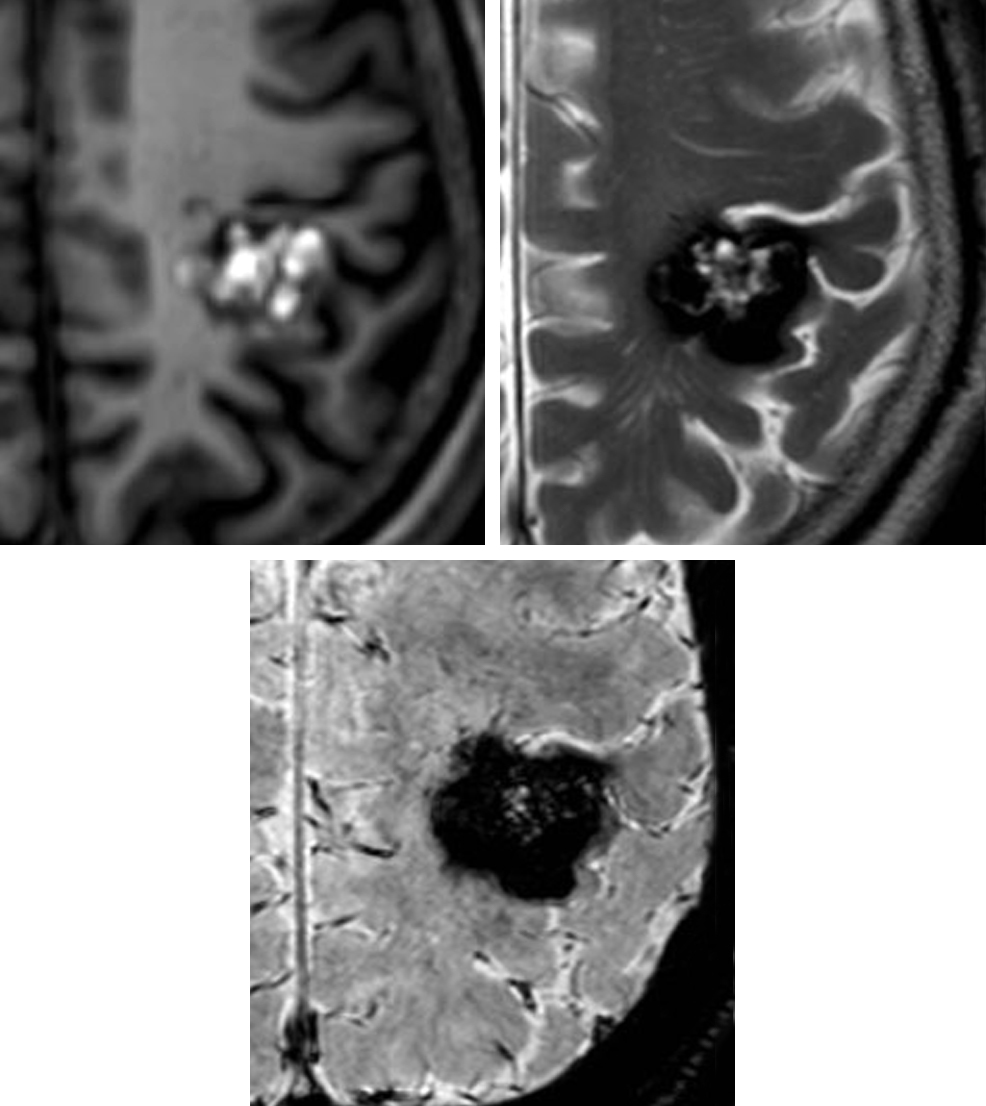 """Figure 1: Axial T1, T2, and SW images reveal a """"popcorn"""" lesion within the left postcentral gyrus demonstrating heterogenous T1 and T2 signal accompanied by hypointense rim of blooming artifact (hemosiderin) typical of a cavernous malformation."""