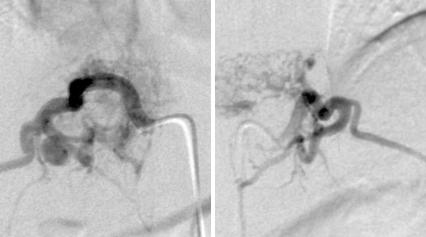 Figure 6c: 23 year old male with large midthoracic vascular birthmark and suspected underlying vascular malformation. Right and left T11 segmental arterial angiograms demonstrating bilateral supply to the metameric AVM.