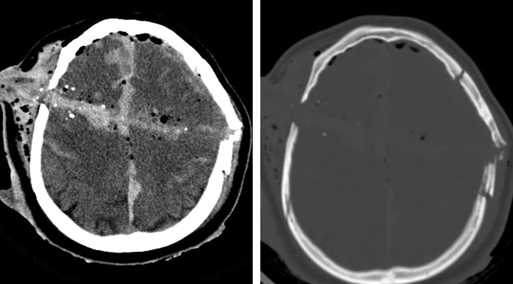 Figure 1: CT in soft tissue window (left) and bone window (right), demonstrating penetrating injury by a bullet with significant damage to brain structures along the bullet tract. Associated are also traumatic pneumocephalus, cerebral contusion and subarachnoid hemorrhage.