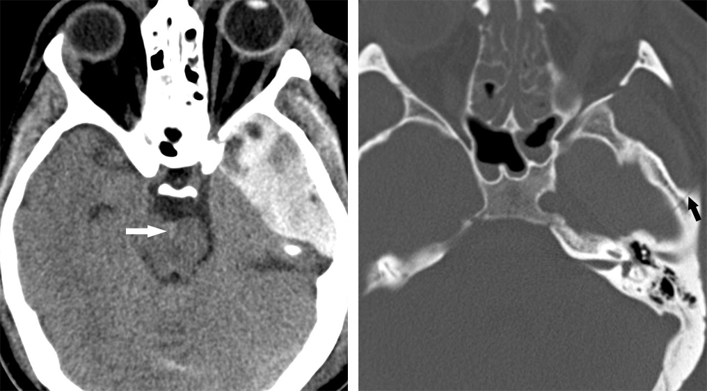 Figure 1: The left middle cranial fossa biconvex hyperdense epidural hematoma on axial CT (left) is likely secondary to middle meningeal artery injury, usually associated with fracture of the temporal bone in the same area, visible in this patient as nondisplaced fracture on bone window axial CT (right). A small amount of subarachnoid blood is also visible in the interpeduncular cistern (left, arrow).