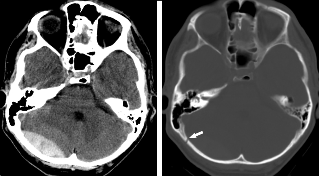 Figure 2: Brain window/level Axial CT (left) through the posterior fossa demonstrates a biconvex epidural hematoma superficial to the right cerebellar hemisphere. Bone window at the same level (right) exhibits an associated overlying nondisplaced fracture of the right occipital bone near the lambdoid suture.